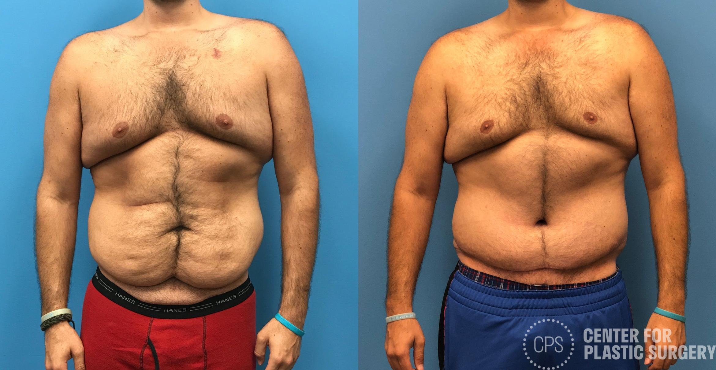 Body Lift Before & After Photo | Annandale, Virginia | Center for Plastic Surgery