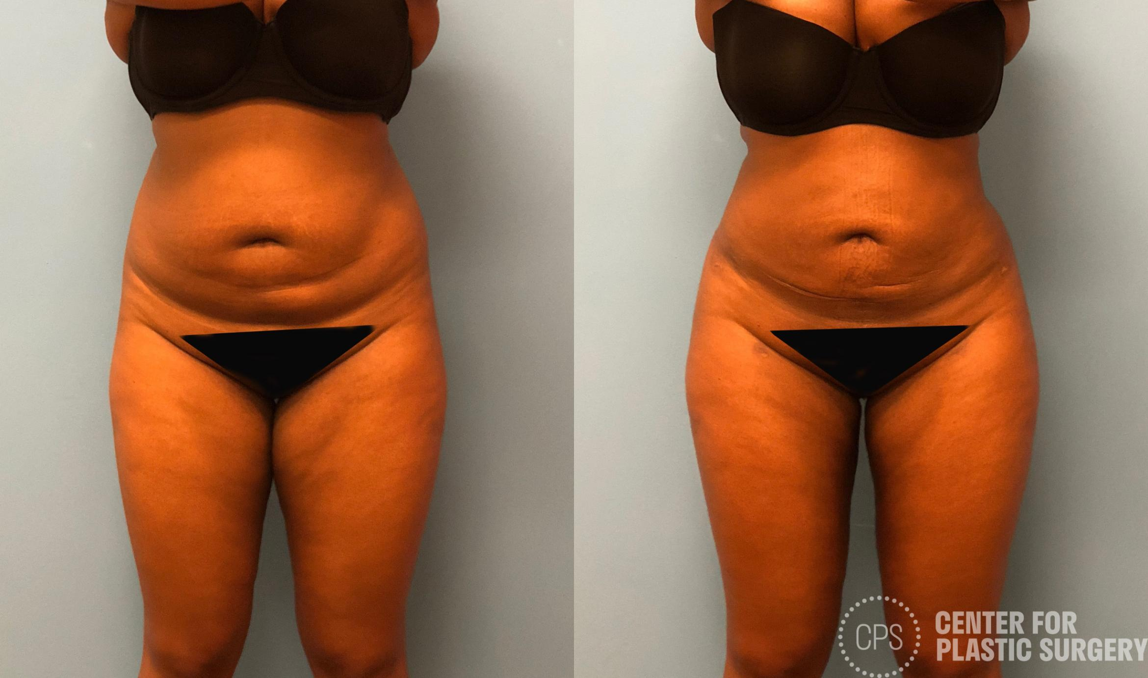 Brazilian Butt Lift Before & After Photo | Annandale, Virginia | Center for Plastic Surgery