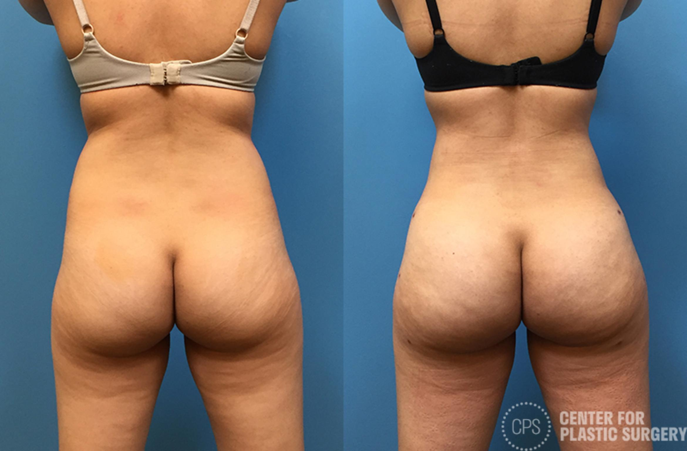 Brazilian Butt Lift Case 73 Before & After Back | Annandale, VA & Chevy Chase, MD, Washington D.C. Metropolitan Area | Center for Plastic Surgery