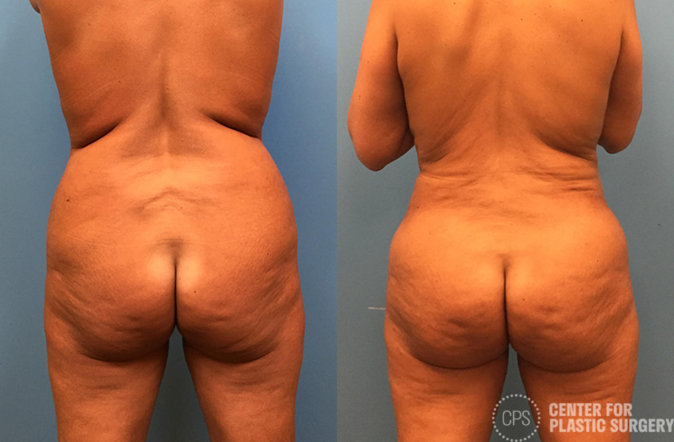 Brazilian Butt Lift Case 74 Before & After Back | Annandale, VA & Chevy Chase, MD, Washington D.C. Metropolitan Area | Center for Plastic Surgery