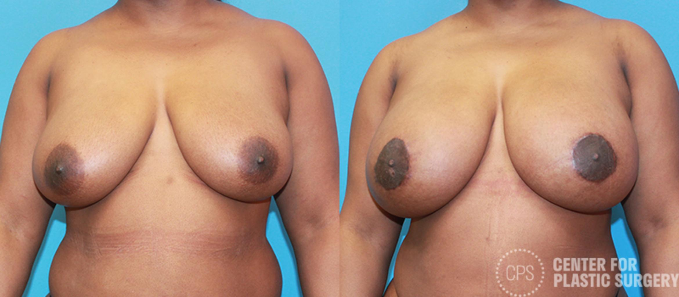 Breast Augmentation Case 103 Before & After Front | Annandale, VA & Chevy Chase, MD, Washington D.C. Metropolitan Area | Center for Plastic Surgery