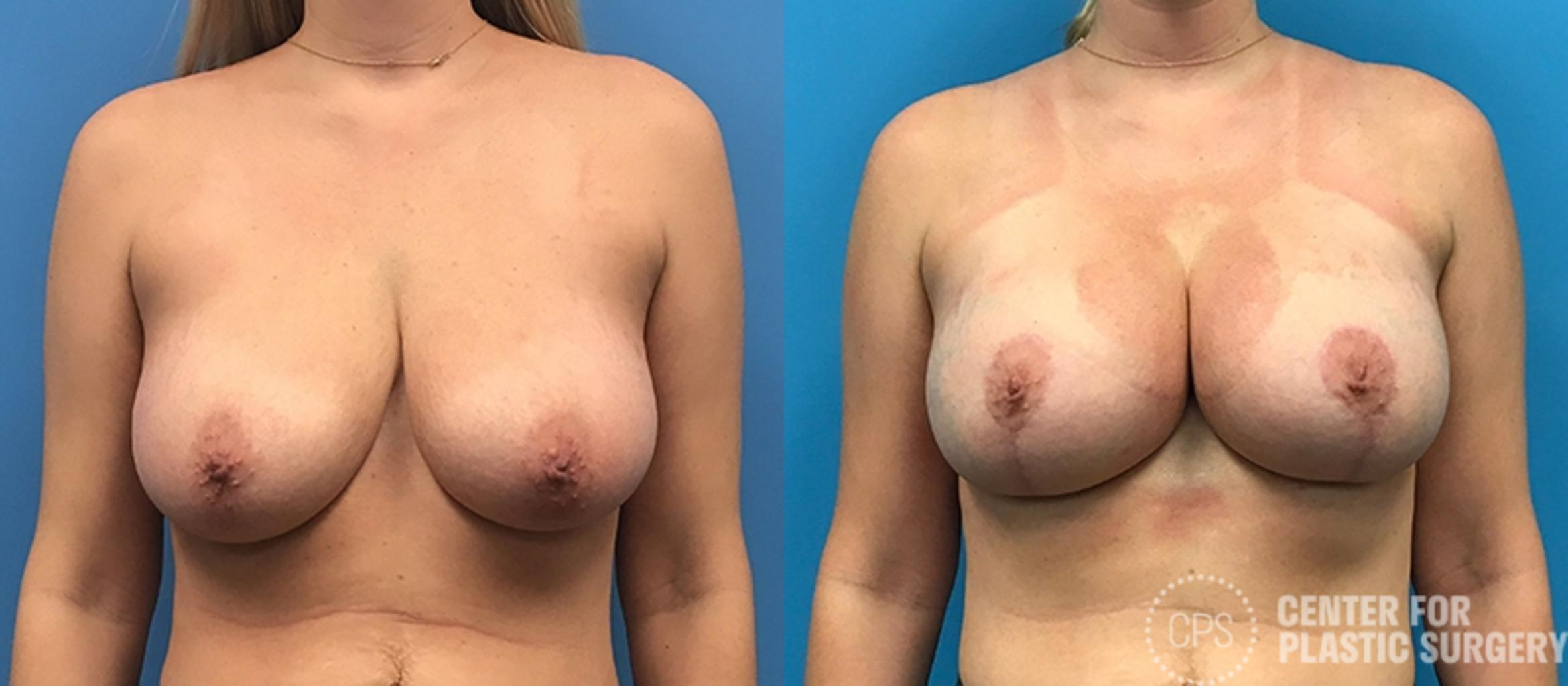 Breast Augmentation Case 115 Before & After Front | Annandale, VA & Chevy Chase, MD, Washington D.C. Metropolitan Area | Center for Plastic Surgery