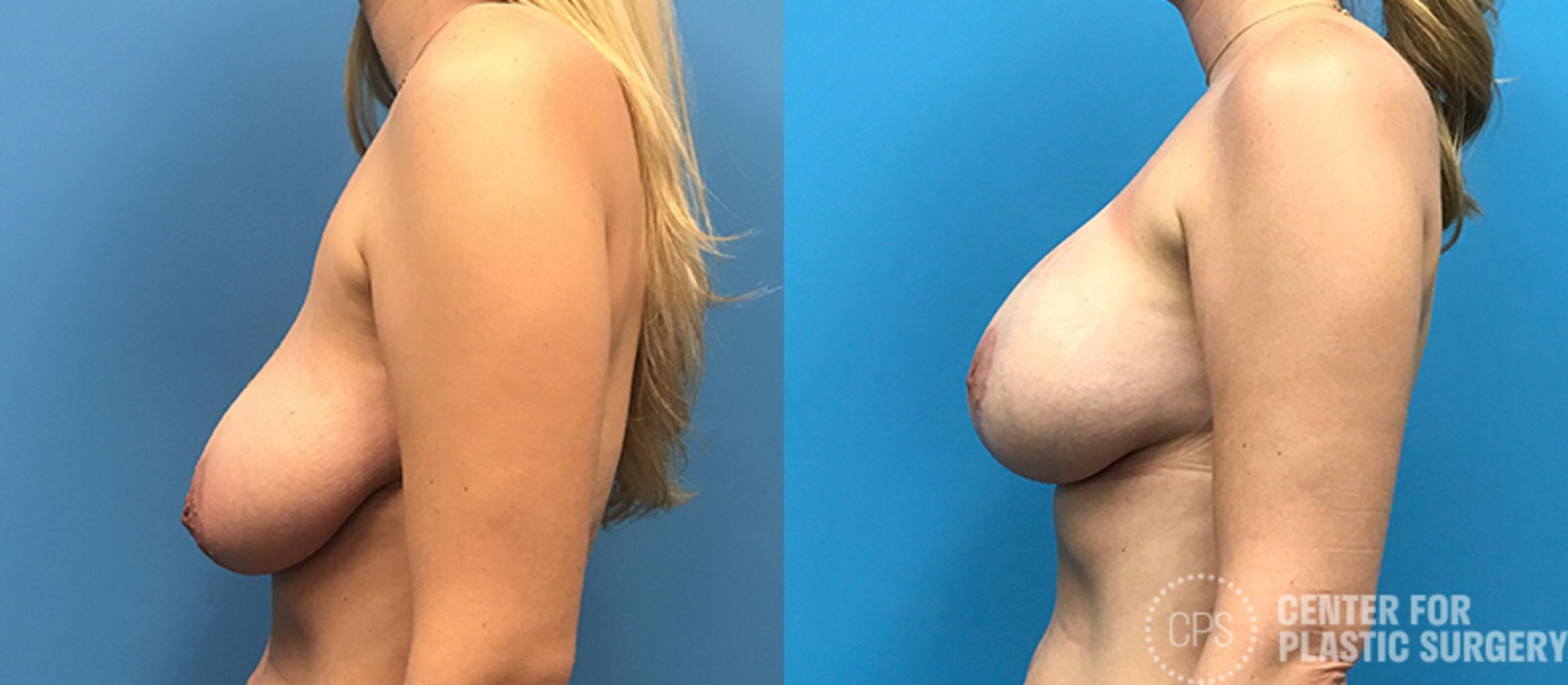 Breast Augmentation Case 115 Before & After Left Side | Annandale, VA & Chevy Chase, MD, Washington D.C. Metropolitan Area | Center for Plastic Surgery