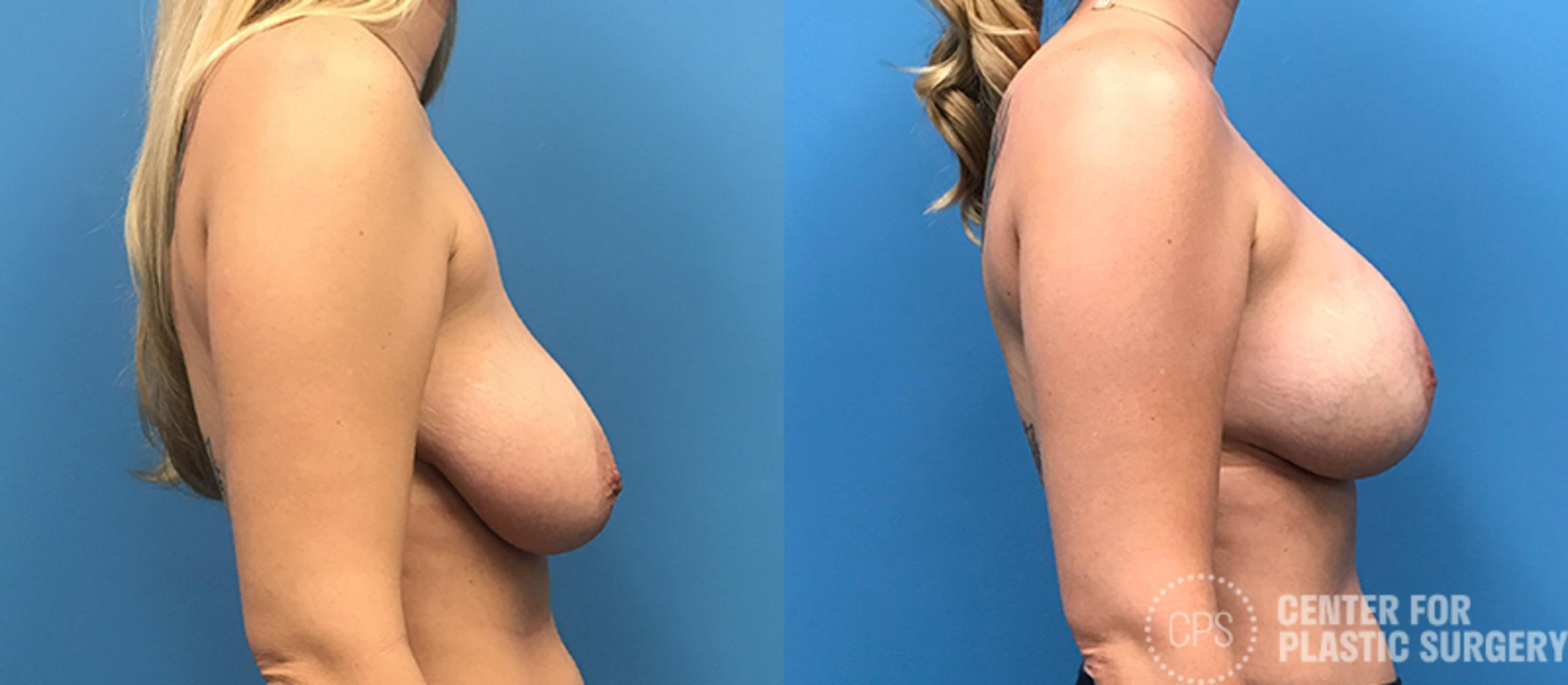 Breast Augmentation Case 115 Before & After Right Side | Annandale, VA & Chevy Chase, MD, Washington D.C. Metropolitan Area | Center for Plastic Surgery
