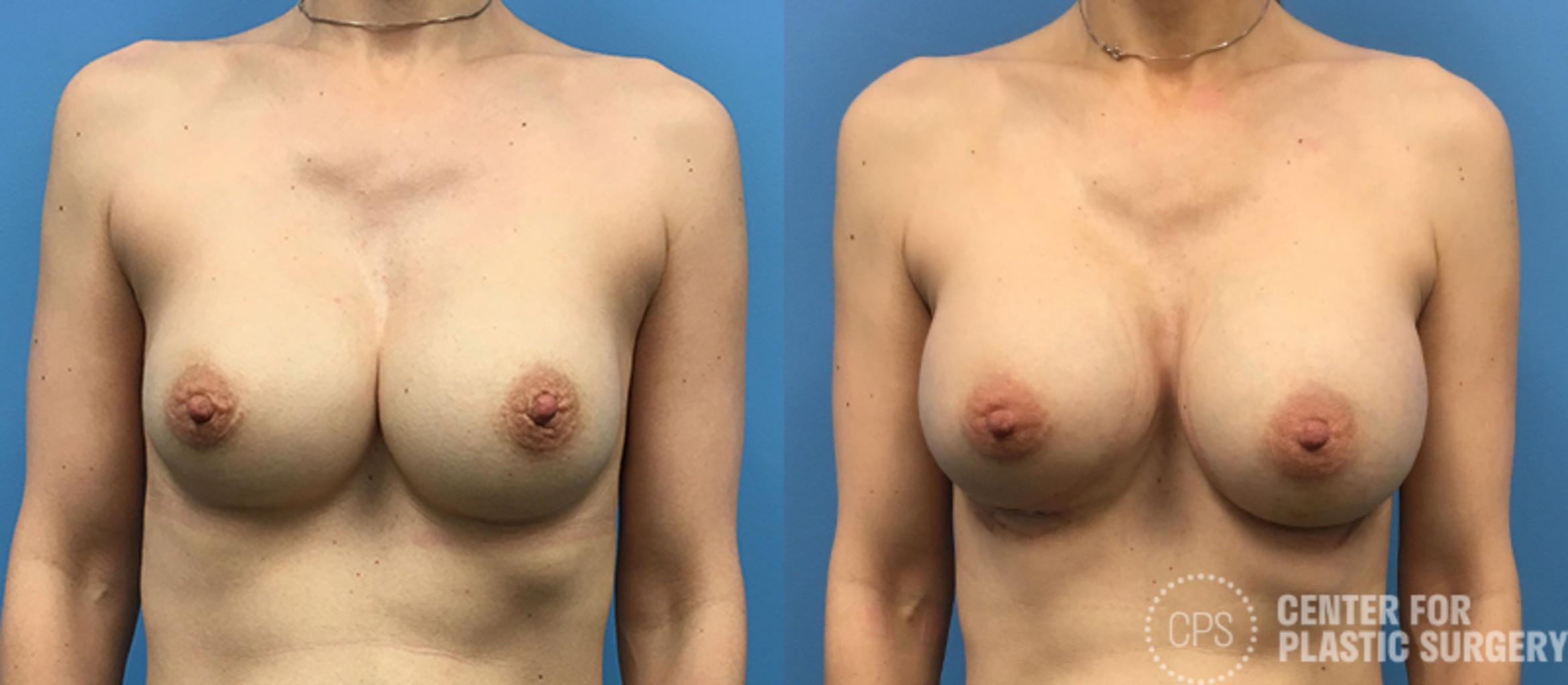 Breast Augmentation Case 117 Before & After Front | Washington DC, Bethesda & Chevy Chase, Washington D.C. Metropolitan Area | Center for Plastic Surgery