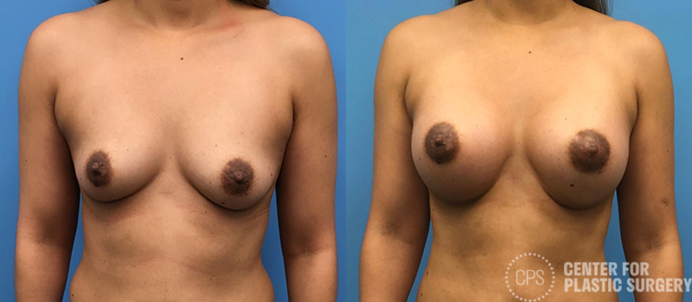 Breast Augmentation Before & After Photo | Annandale, Virginia | Center for Plastic Surgery