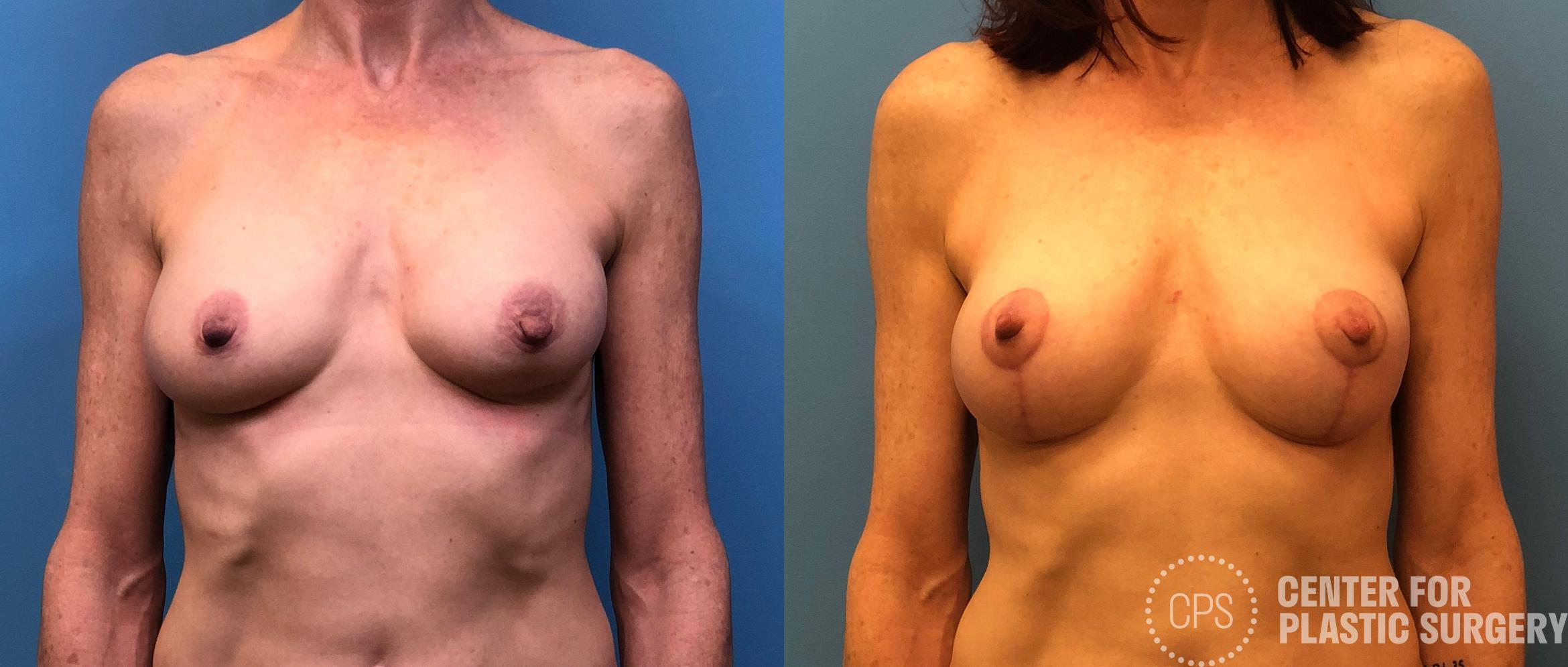 Breast Lift Case 177 Before & After Front | Washington DC, Bethesda & Chevy Chase, Washington D.C. Metropolitan Area | Center for Plastic Surgery