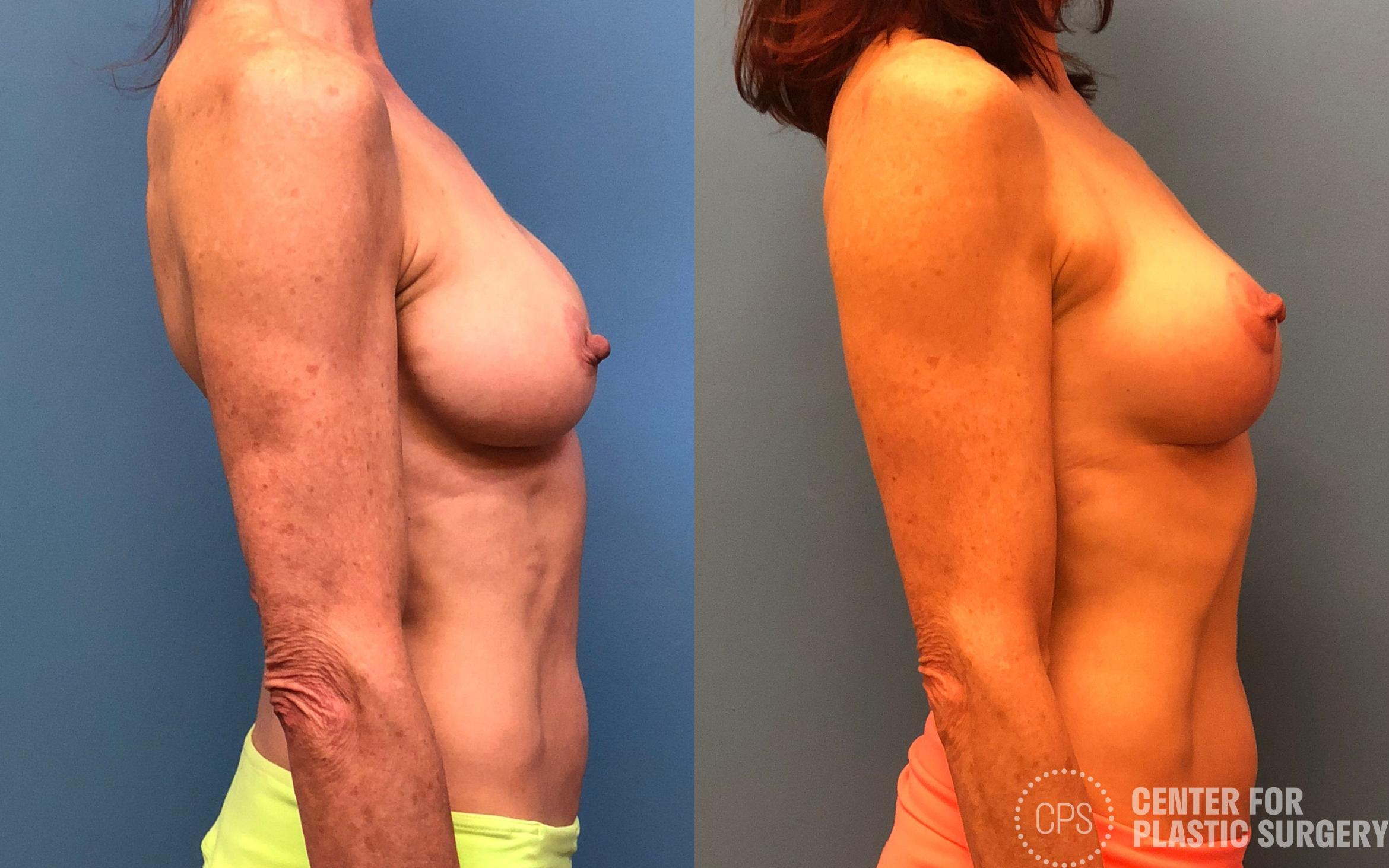 Revision Augmentation Before & After Photo | Annandale, Virginia | Center for Plastic Surgery