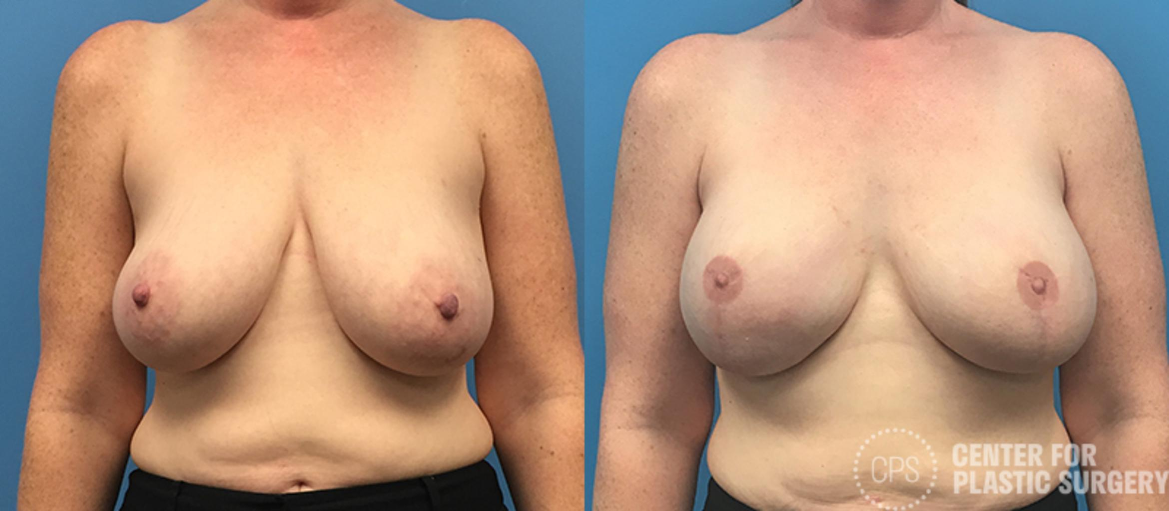 Breast Reconstruction Case 137 Before & After Front | Washington DC, Bethesda & Chevy Chase, Washington D.C. Metropolitan Area | Center for Plastic Surgery