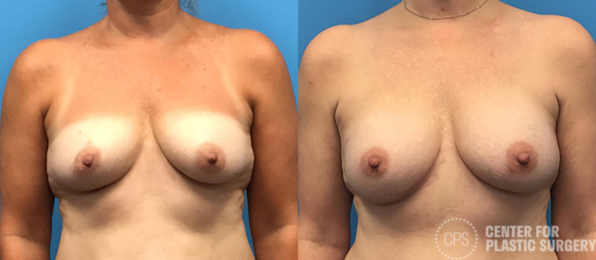 Breast Reconstruction Case 139 Before & After Front | Annandale, VA & Chevy Chase, MD, Washington D.C. Metropolitan Area | Center for Plastic Surgery
