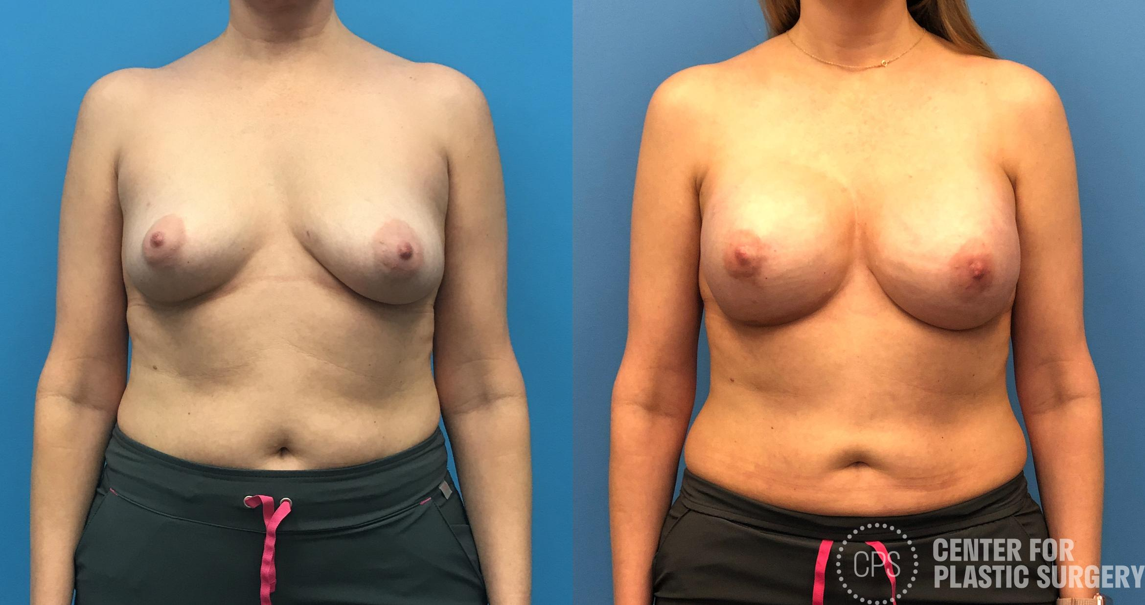 Breast Reconstruction Case 149 Before & After Front | Annandale, VA & Chevy Chase, MD, Washington D.C. Metropolitan Area | Center for Plastic Surgery