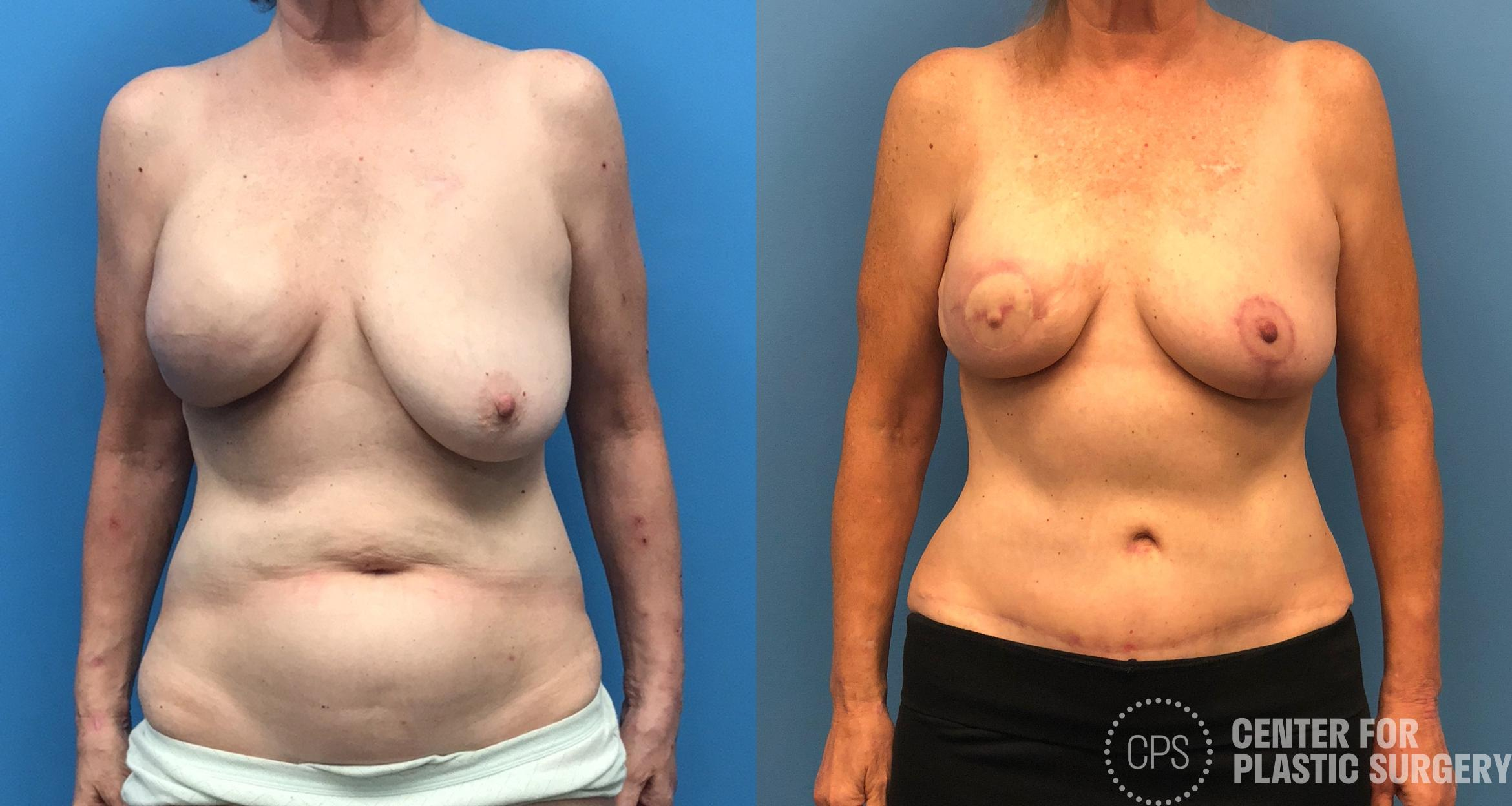 Breast Reconstruction Case 178 Before & After Front | Washington DC, Bethesda & Chevy Chase, Washington D.C. Metropolitan Area | Center for Plastic Surgery