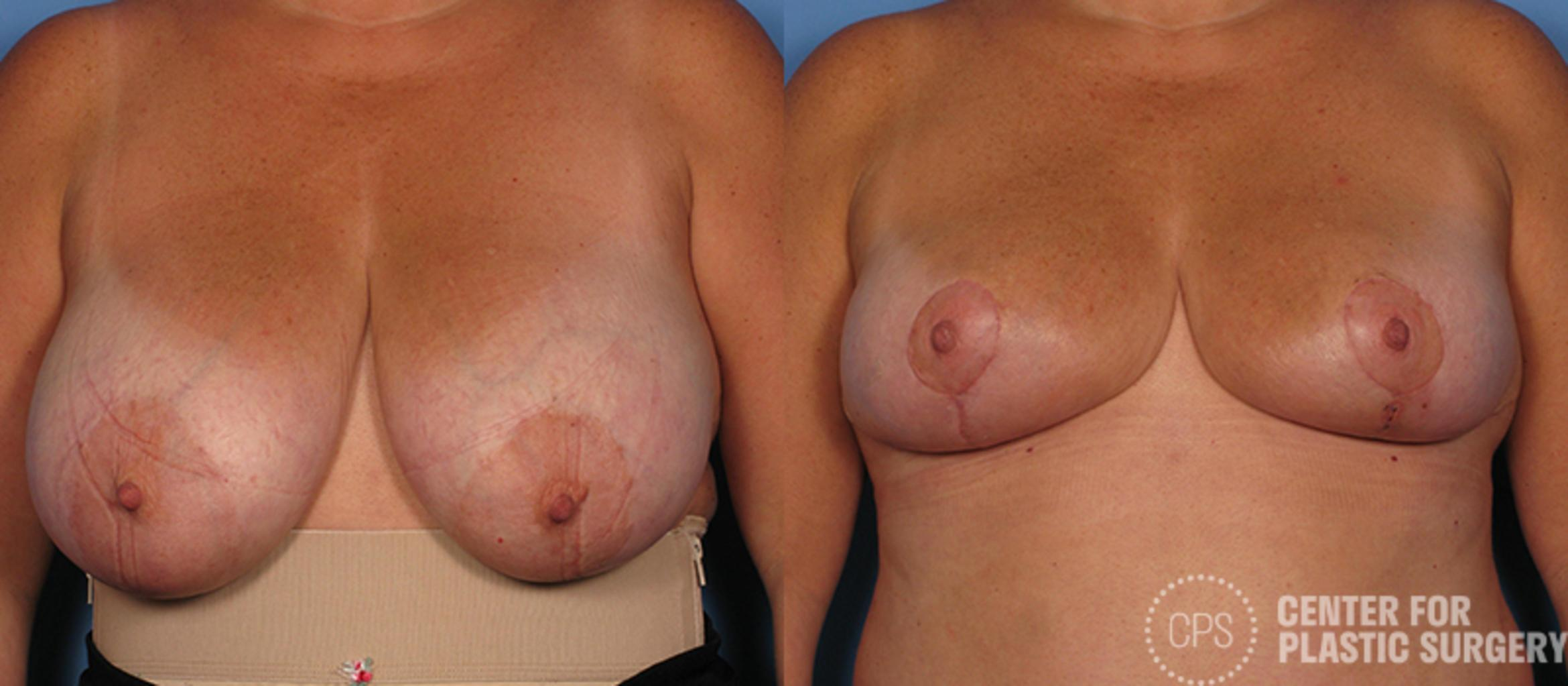 Breast Reduction Case 129 Before & After Front | Annandale, VA & Chevy Chase, MD, Washington D.C. Metropolitan Area | Center for Plastic Surgery