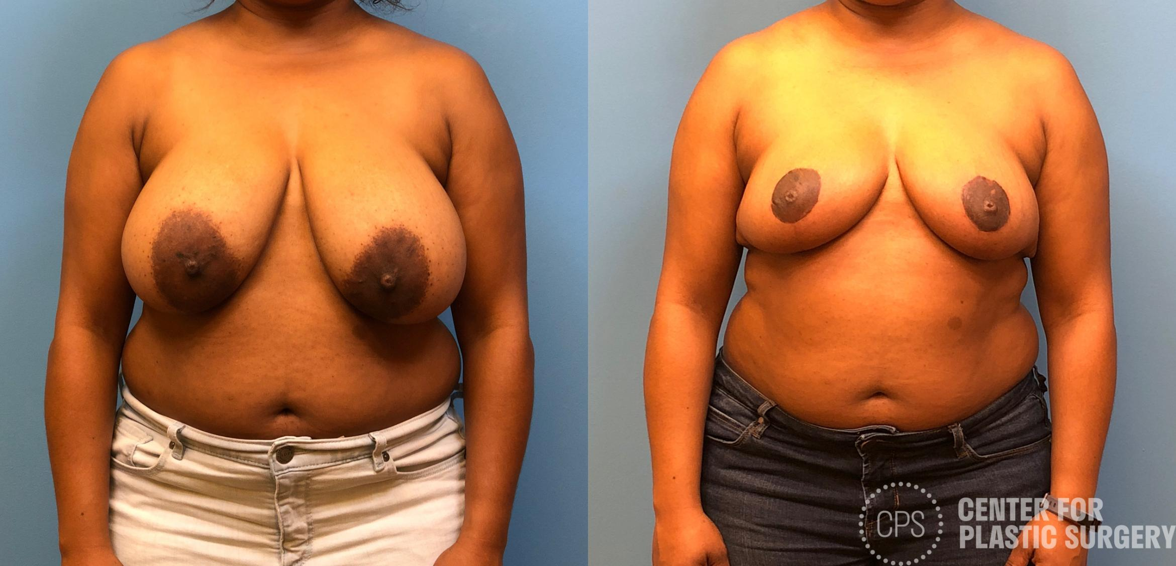 Breast Reduction Case 167 Before & After Front | Annandale, VA & Chevy Chase, MD, Washington D.C. Metropolitan Area | Center for Plastic Surgery