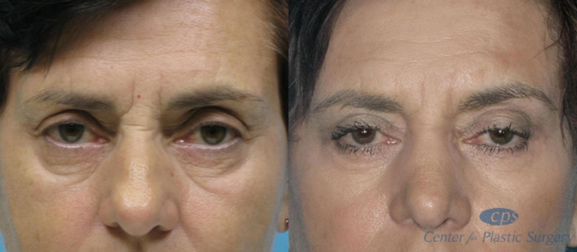 Eyelid Surgery Case 16 Before & After Front | Annandale, VA & Chevy Chase, MD, Washington D.C. Metropolitan Area | Center for Plastic Surgery