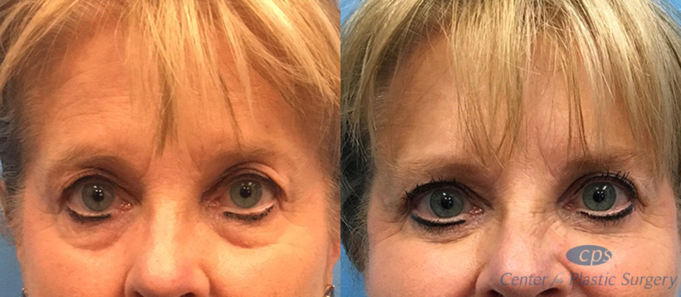 Eyelid Lift Before & After Photo | Annandale, Virginia | Center for Plastic Surgery