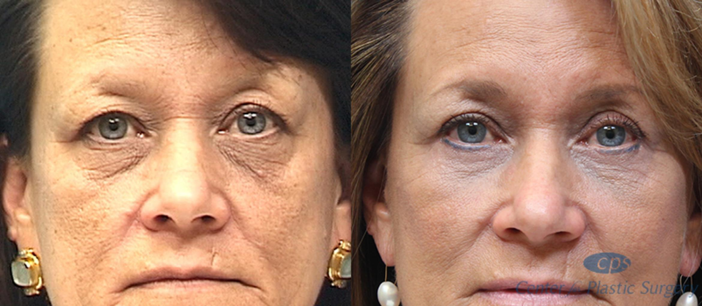 Eyelid Surgery Case 22 Before & After Front | Annandale, VA & Chevy Chase, MD, Washington D.C. Metropolitan Area | Center for Plastic Surgery
