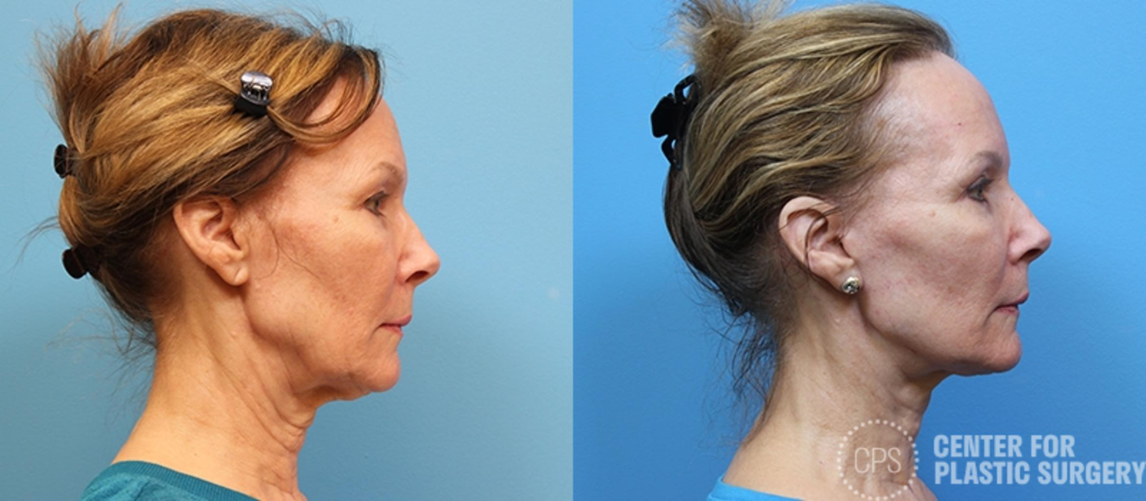 Facelift Case 1 Before & After Right Side | Annandale, VA & Chevy Chase, MD, Washington D.C. Metropolitan Area | Center for Plastic Surgery