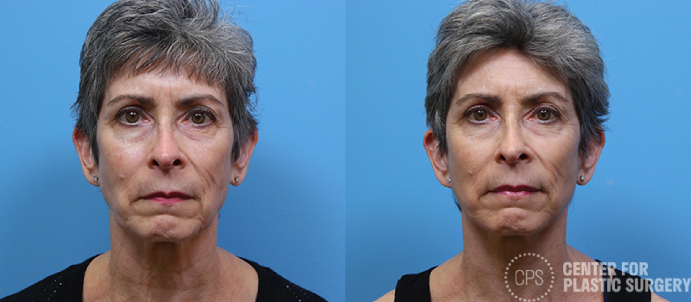 Facelift Case 10 Before & After Front | Annandale, VA & Chevy Chase, MD, Washington D.C. Metropolitan Area | Center for Plastic Surgery