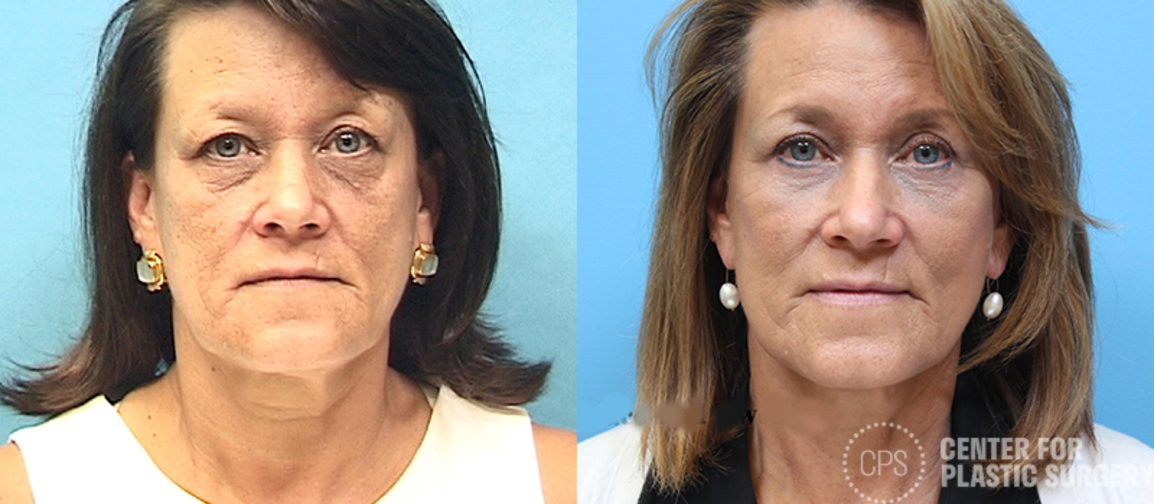 Facelift Case 11 Before & After Front | Annandale, VA & Chevy Chase, MD, Washington D.C. Metropolitan Area | Center for Plastic Surgery