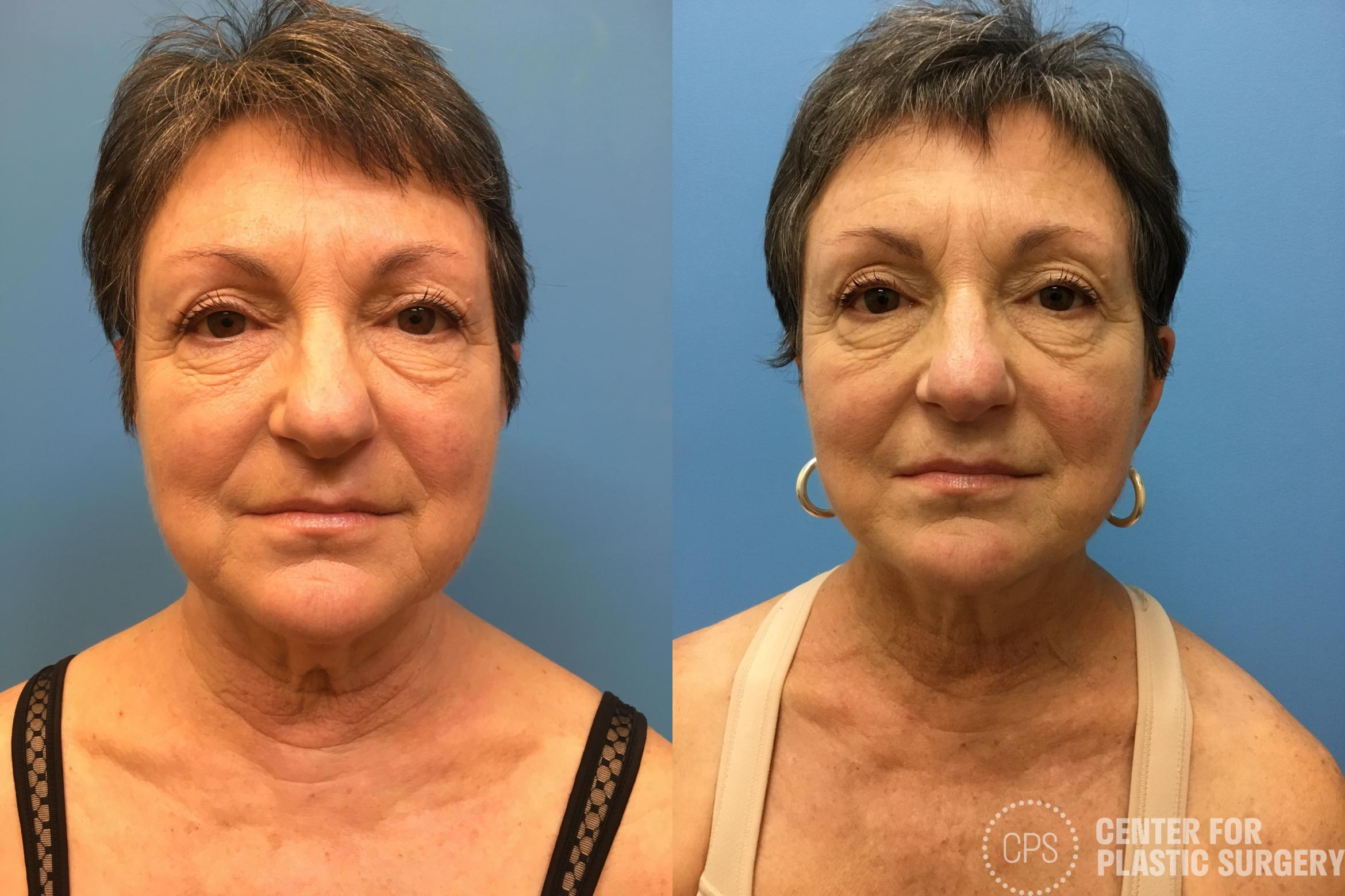 Facelift Case 162 Before & After Front | Annandale, VA & Chevy Chase, MD, Washington D.C. Metropolitan Area | Center for Plastic Surgery