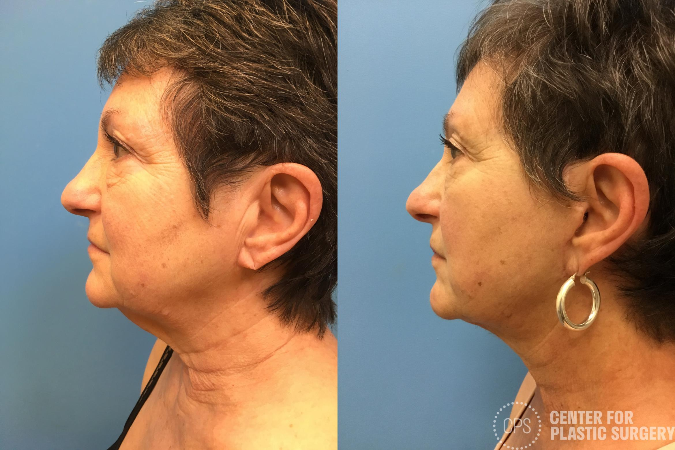 Facelift Case 162 Before & After Left Side | Annandale, VA & Chevy Chase, MD, Washington D.C. Metropolitan Area | Center for Plastic Surgery