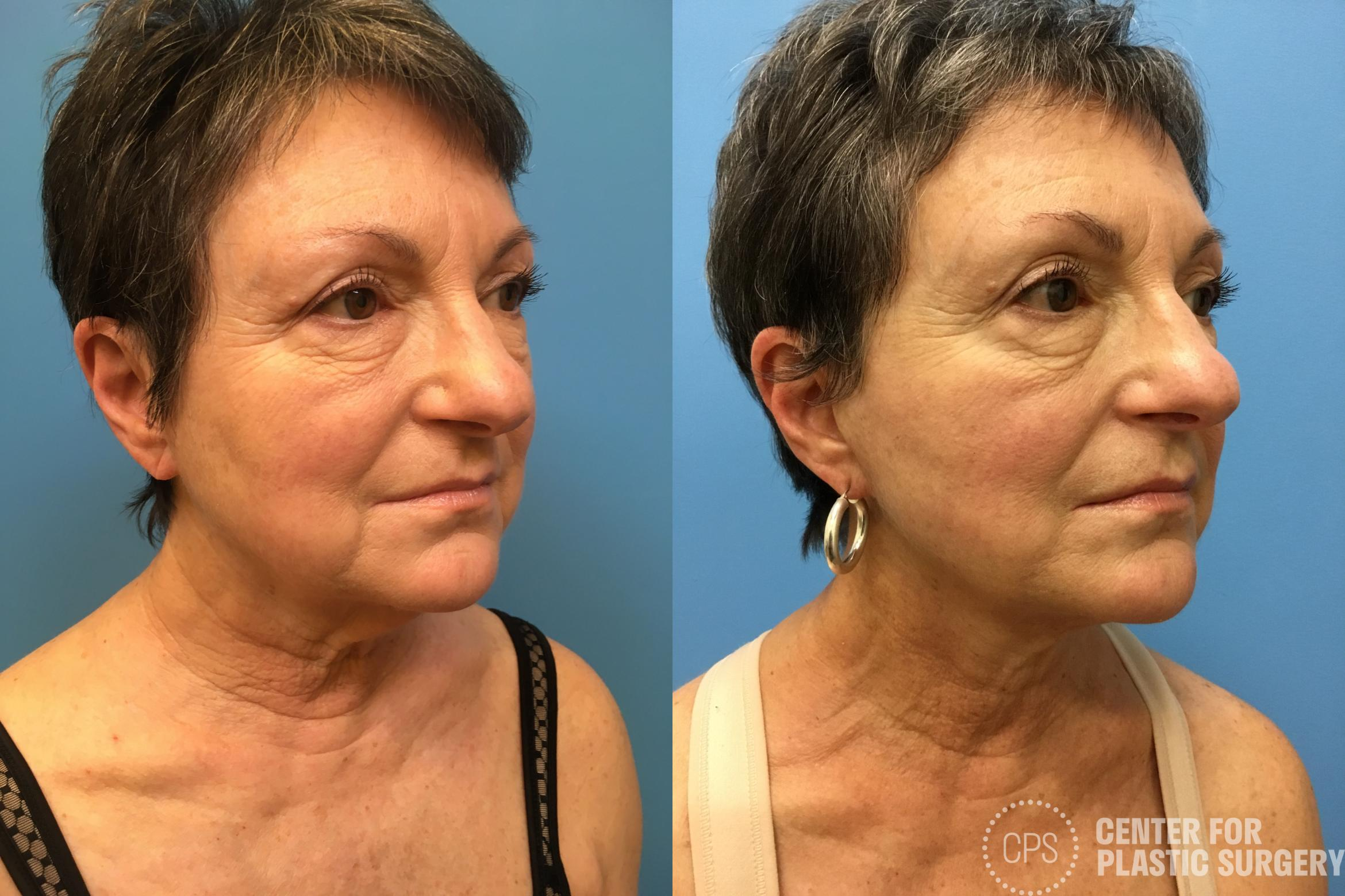 Facelift Case 162 Before & After Right Oblique | Annandale, VA & Chevy Chase, MD, Washington D.C. Metropolitan Area | Center for Plastic Surgery