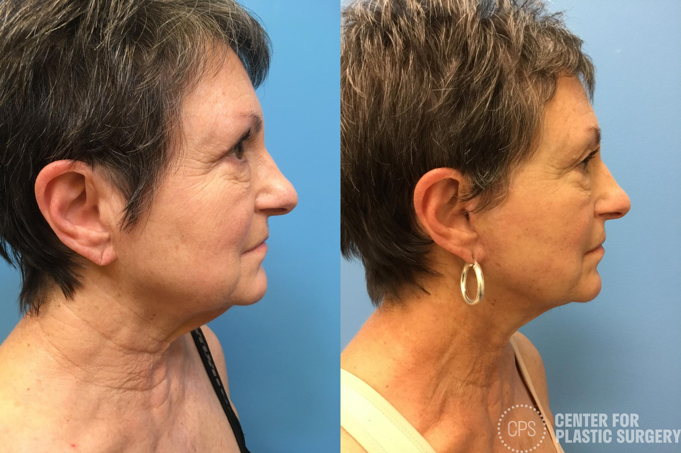Neck Lift Case 162 Before & After Right Side | Annandale, VA & Chevy Chase, MD, Washington D.C. Metropolitan Area | Center for Plastic Surgery