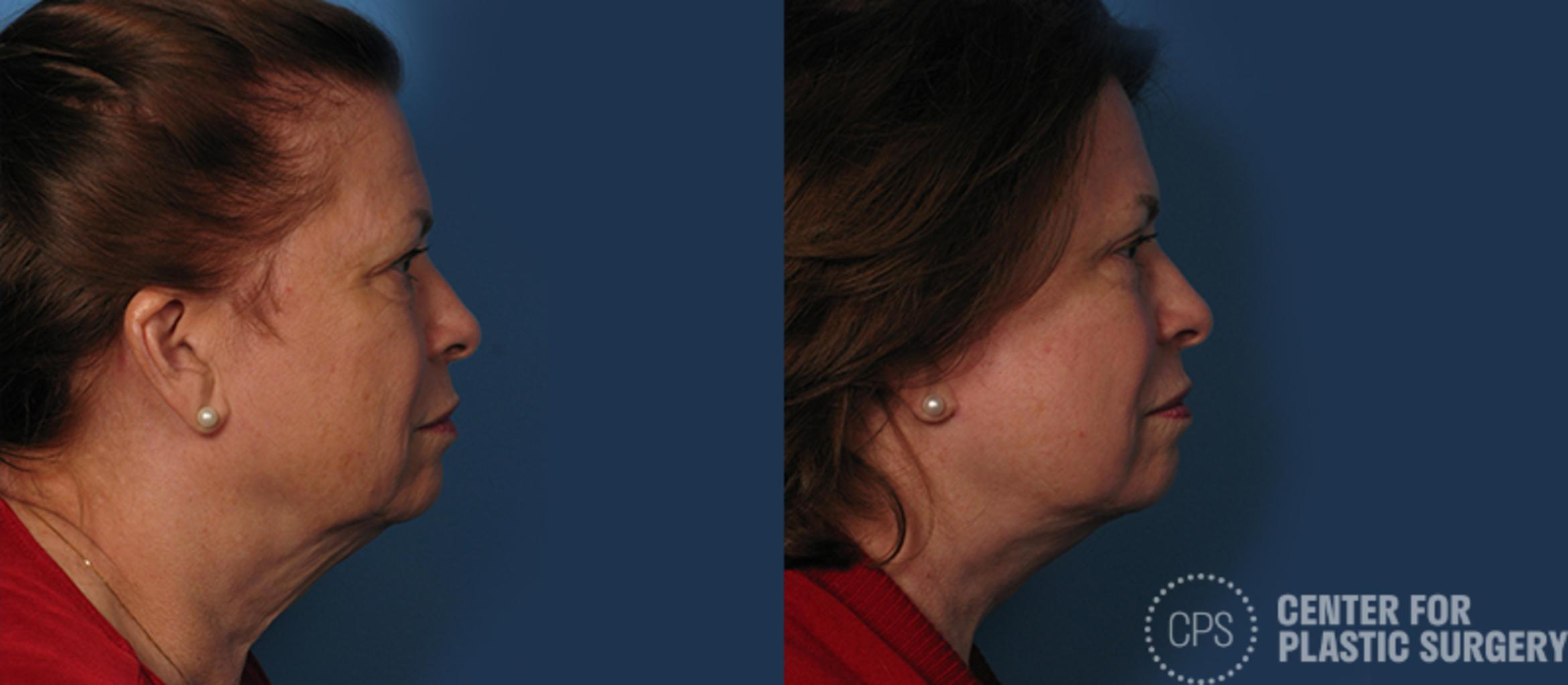 Facelift Before & After Photo | Annandale, Virginia | Center for Plastic Surgery