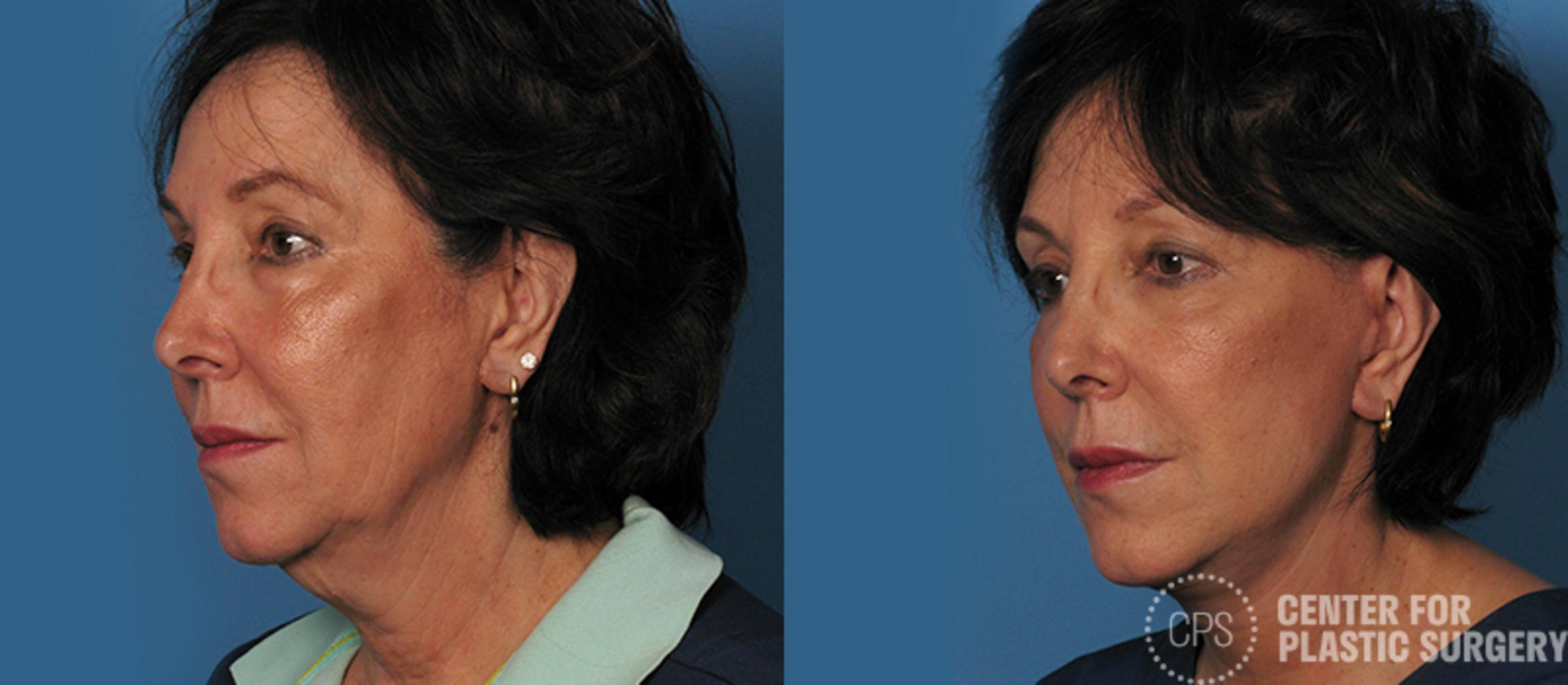 Facelift Case 4 Before & After Left Oblique | Annandale, VA & Chevy Chase, MD, Washington D.C. Metropolitan Area | Center for Plastic Surgery