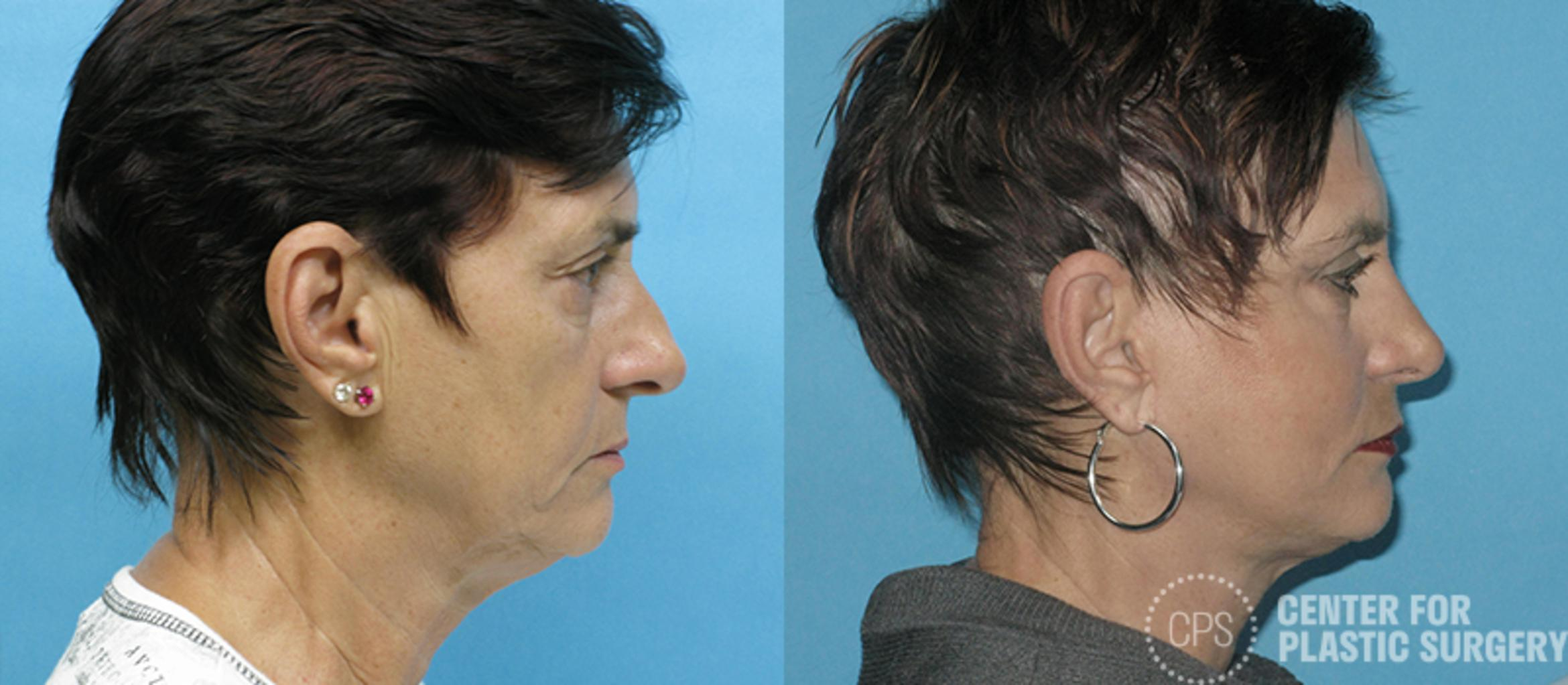 Facelift Case 6 Before & After Front | Annandale, VA & Chevy Chase, MD, Washington D.C. Metropolitan Area | Center for Plastic Surgery