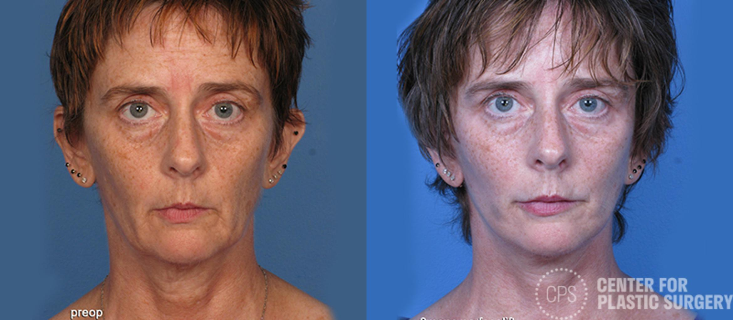 Facelift Case 7 Before & After Front | Annandale, VA & Chevy Chase, MD, Washington D.C. Metropolitan Area | Center for Plastic Surgery