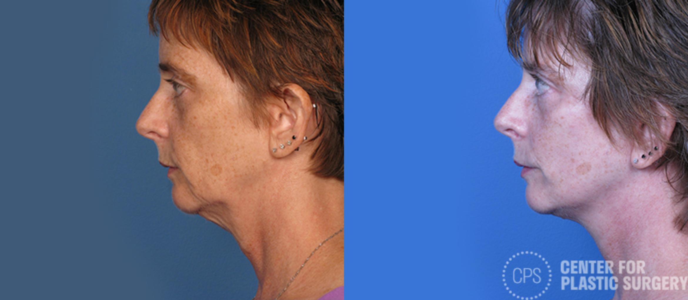 Facelift Case 7 Before & After Left Side | Annandale, VA & Chevy Chase, MD, Washington D.C. Metropolitan Area | Center for Plastic Surgery