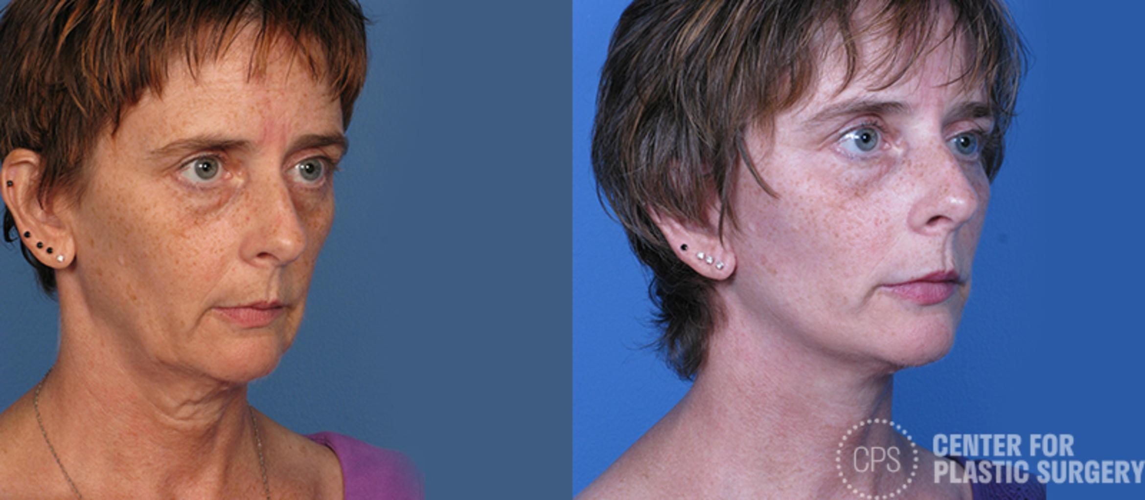 Facelift Case 7 Before & After Right Oblique | Annandale, VA & Chevy Chase, MD, Washington D.C. Metropolitan Area | Center for Plastic Surgery