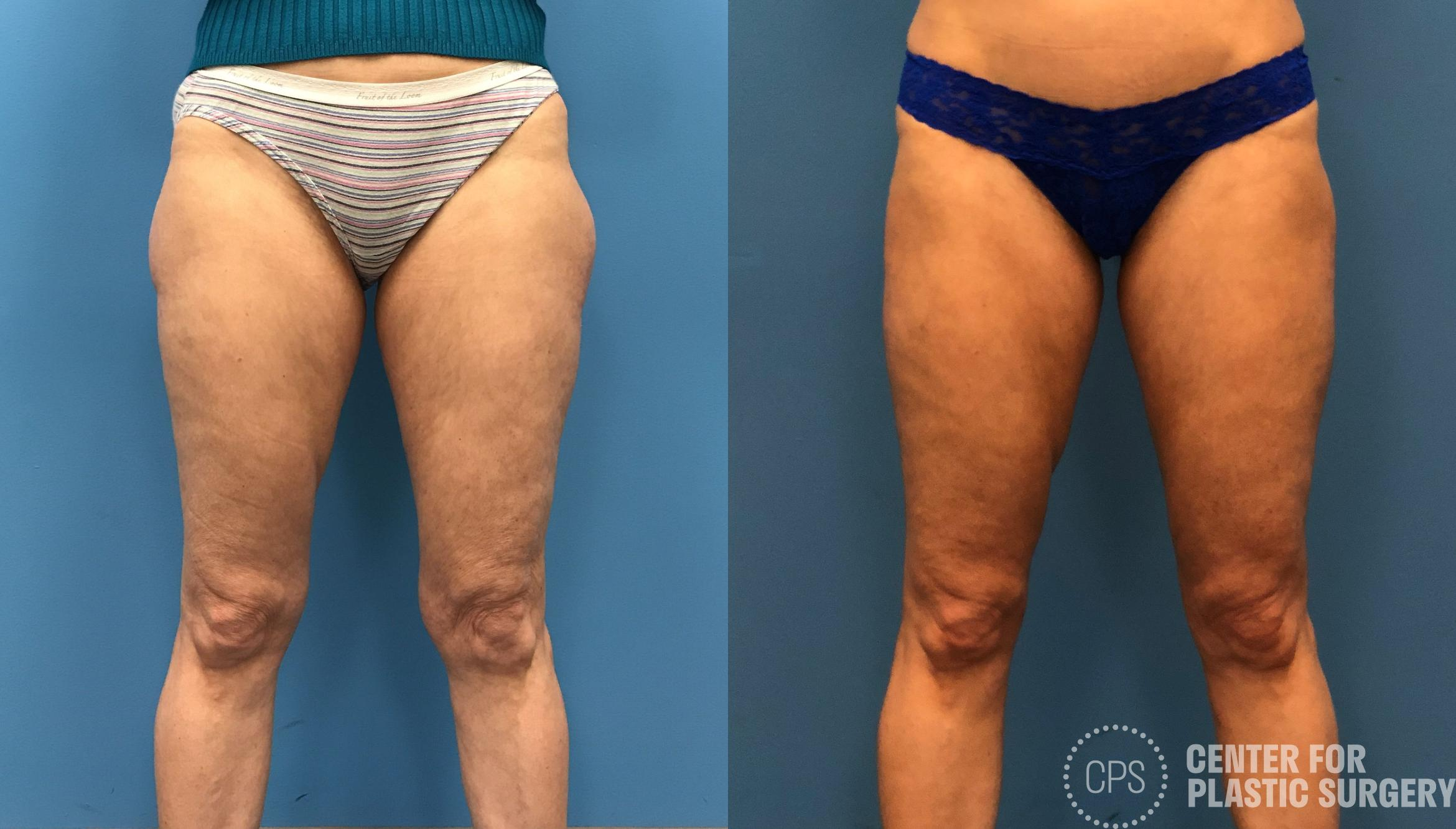Liposuction Case 163 Before & After Front | Annandale, VA & Chevy Chase, MD, Washington D.C. Metropolitan Area | Center for Plastic Surgery
