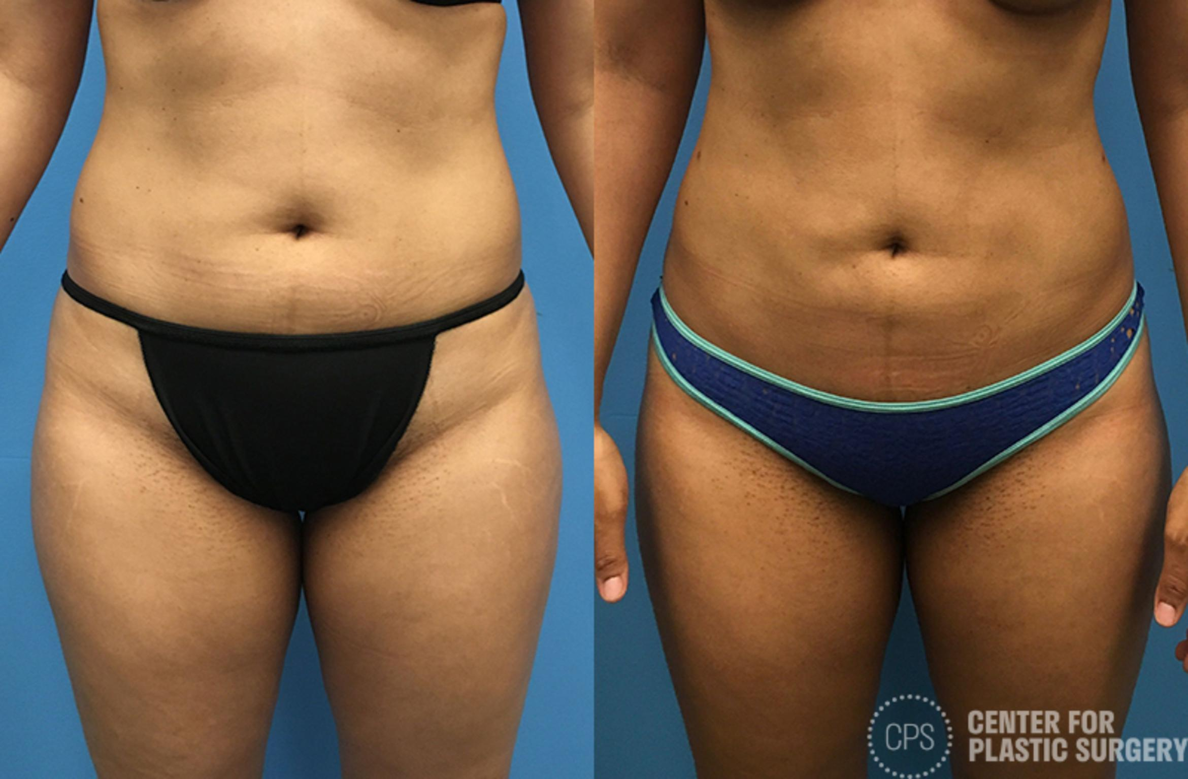 Liposuction Before & After Photo | Annandale, Virginia | Center for Plastic Surgery