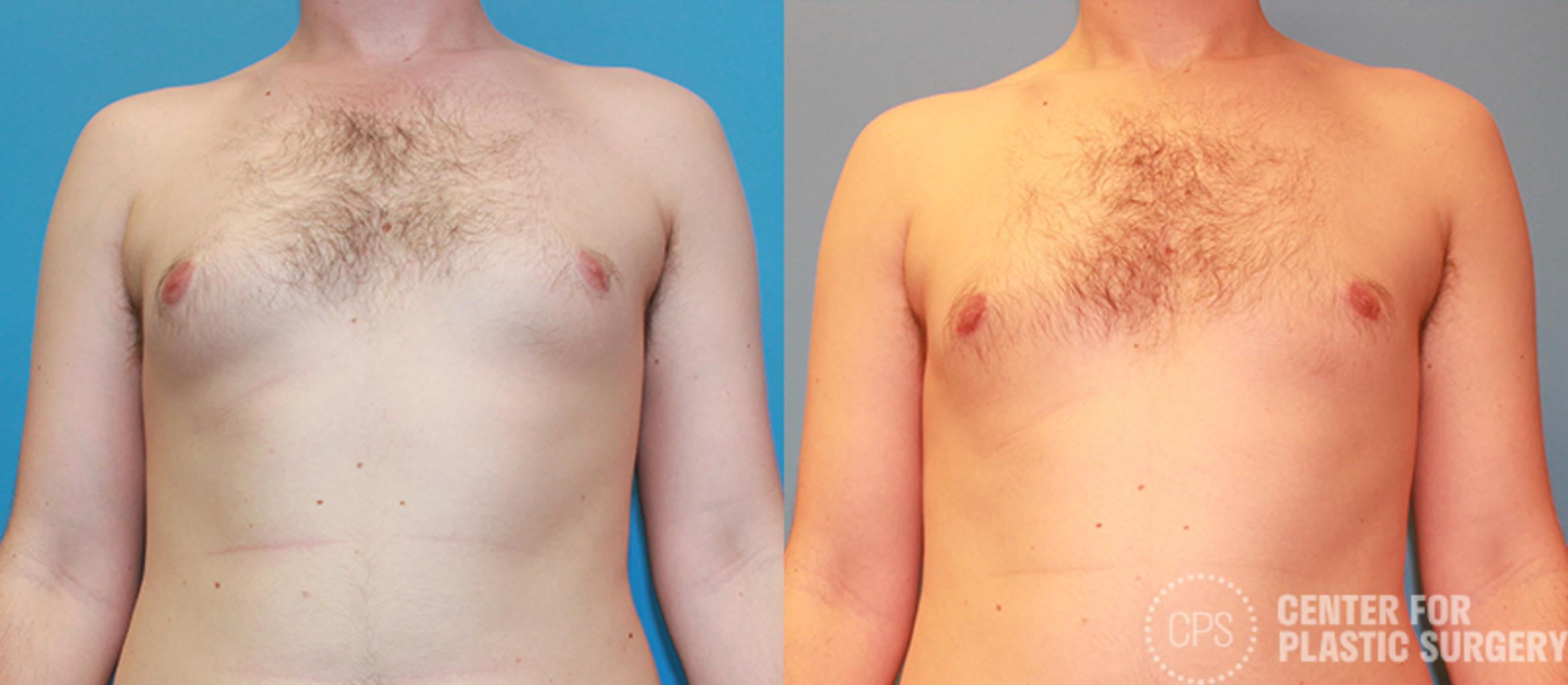 Male Breast Reduction Case 141 Before & After Front | Annandale, VA & Chevy Chase, MD, Washington D.C. Metropolitan Area | Center for Plastic Surgery