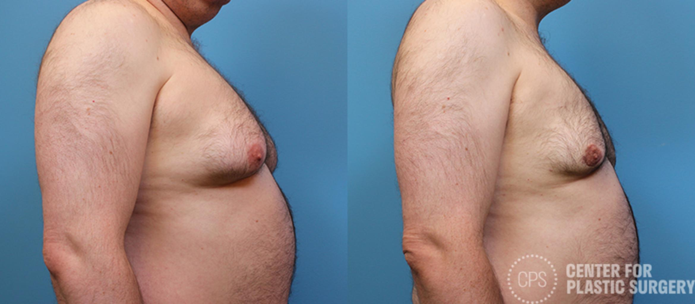 Male Breast Reduction Before & After Photo | Annandale, Virginia | Center for Plastic Surgery