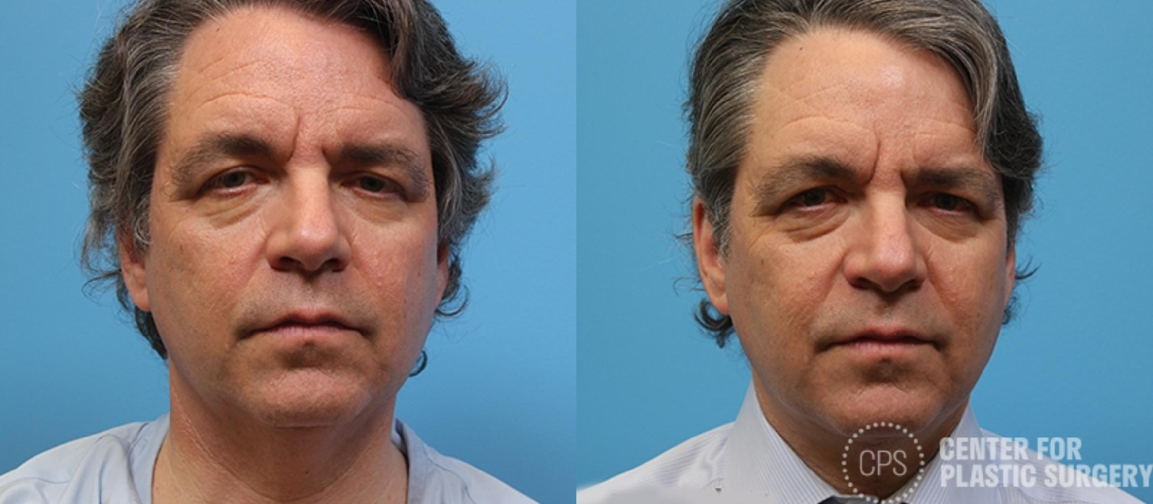 Neck Lift Before & After Photo | Annandale, Virginia | Center for Plastic Surgery