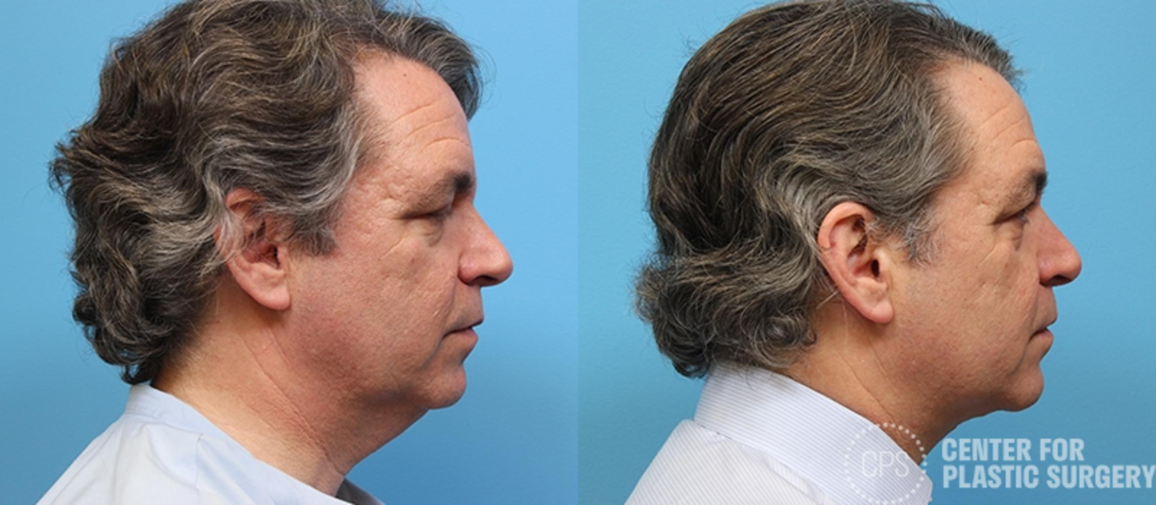 Neck Lift Case 30 Before & After Right Side | Annandale, VA & Chevy Chase, MD, Washington D.C. Metropolitan Area | Center for Plastic Surgery