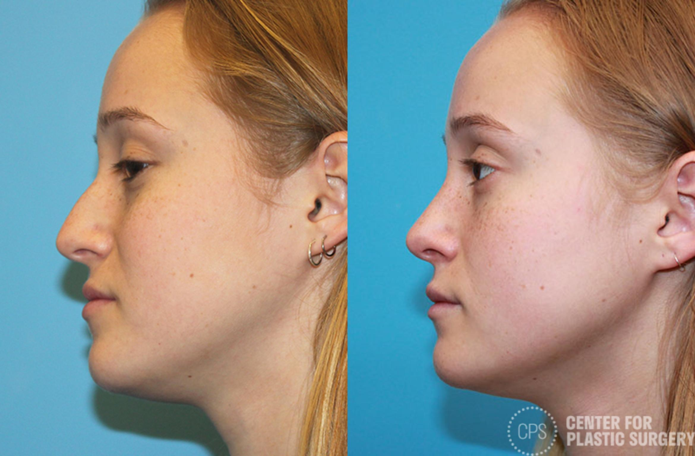 Rhinoplasty Case 23 Before & After Left Side | Washington DC, Bethesda & Chevy Chase, Washington D.C. Metropolitan Area | Center for Plastic Surgery