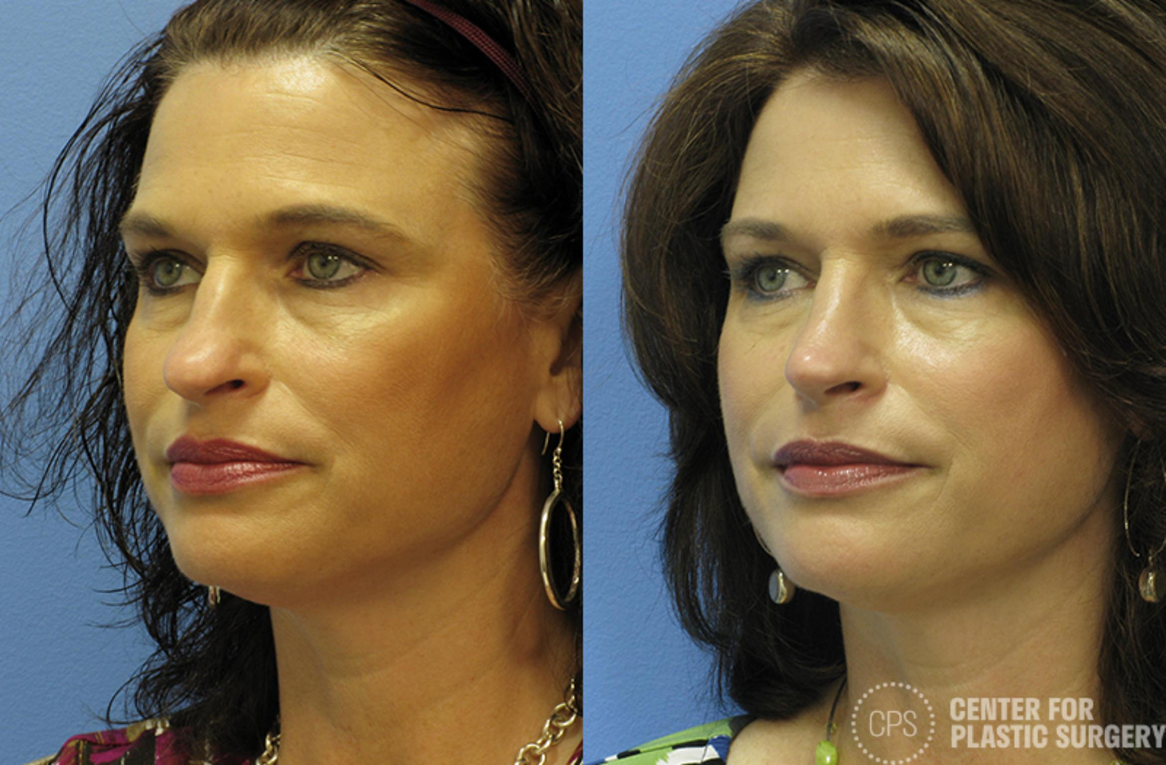 Rhinoplasty Case 25 Before & After Left Oblique | Washington DC, Bethesda & Chevy Chase, Washington D.C. Metropolitan Area | Center for Plastic Surgery