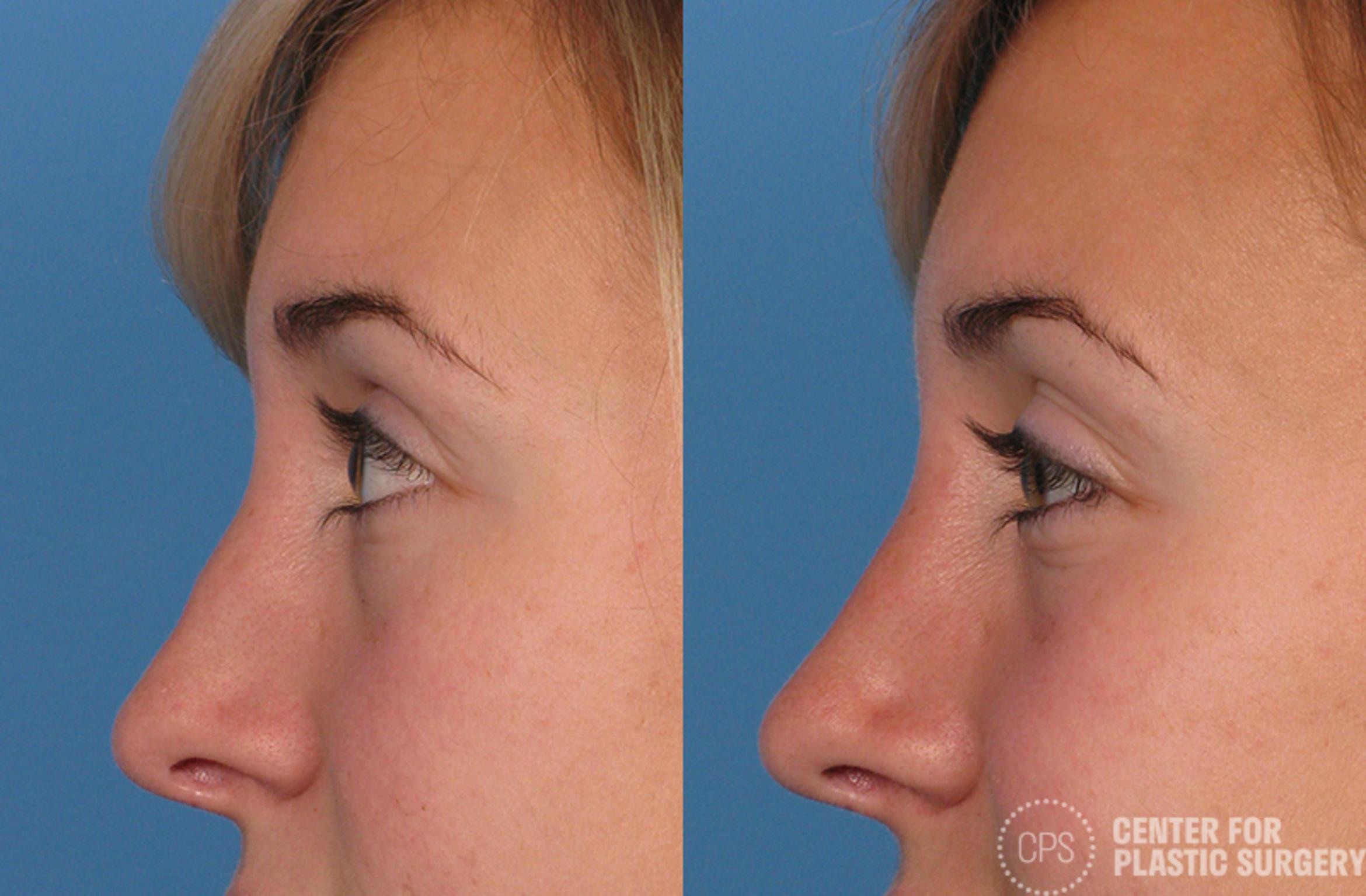 Rhinoplasty Before & After Photo | Annandale, Virginia | Center for Plastic Surgery