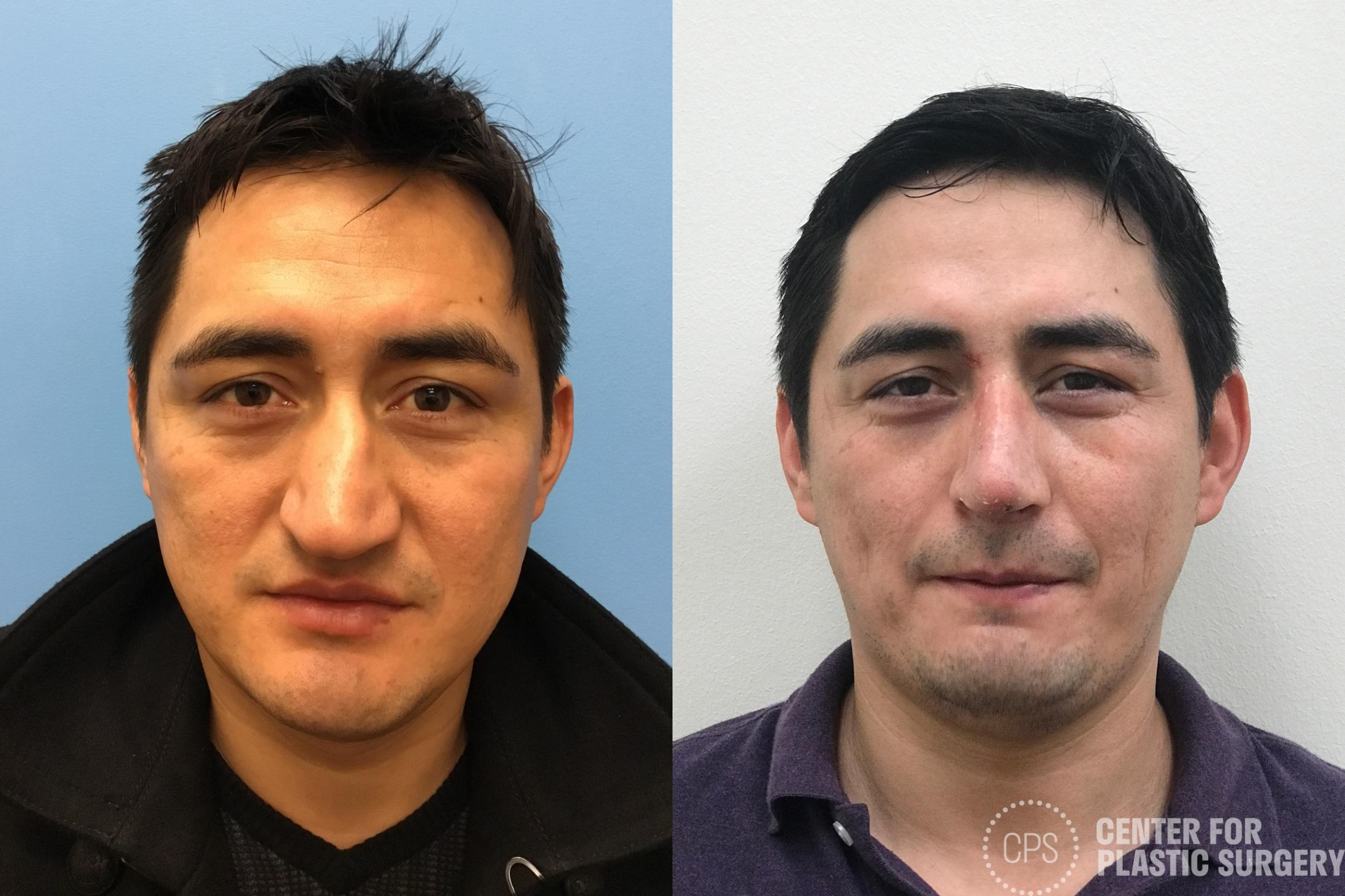 Rhinoplasty for Men Case 186 Before & After Front | Annandale, VA & Chevy Chase, MD, Washington D.C. Metropolitan Area | Center for Plastic Surgery