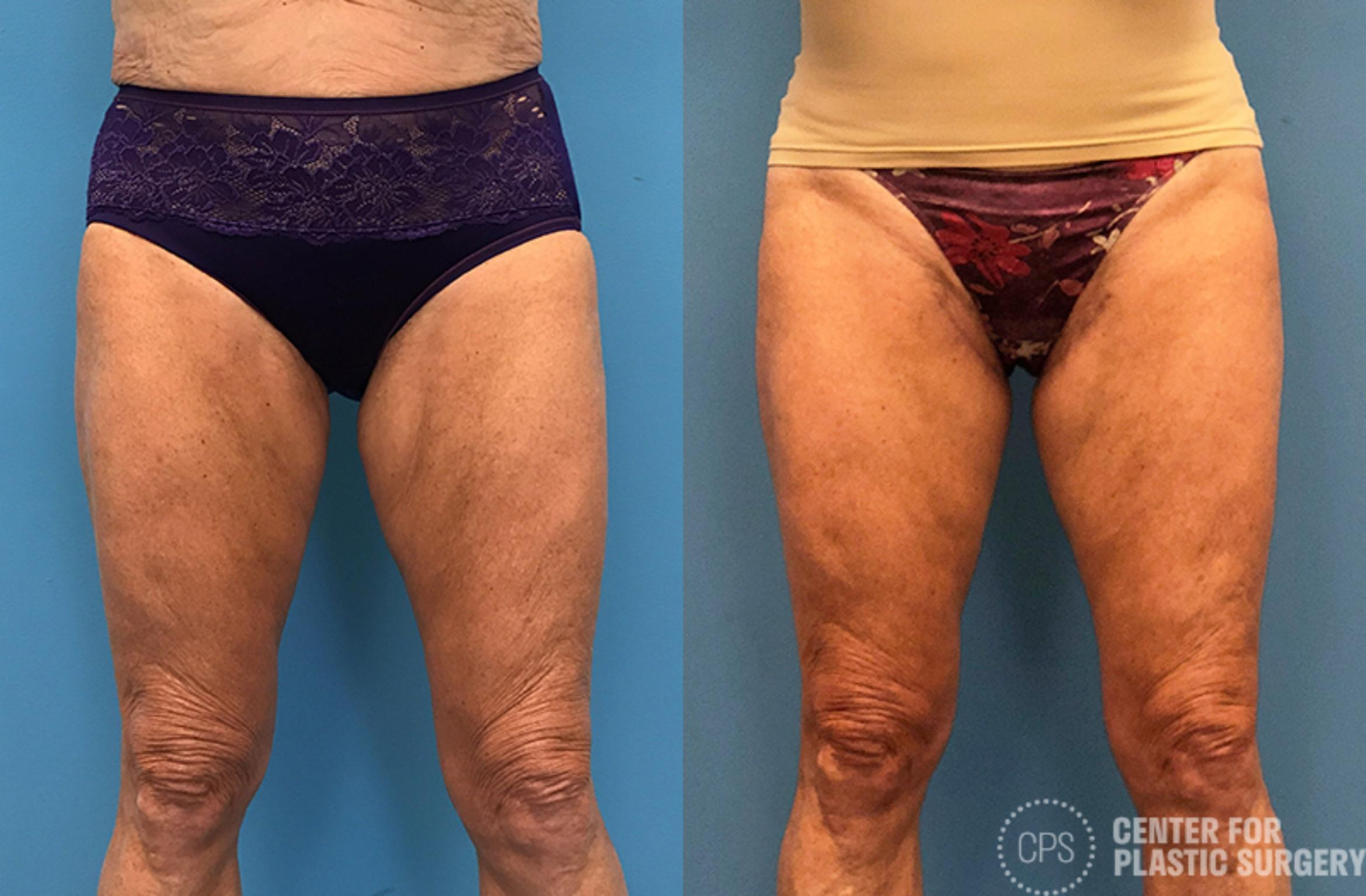 Thigh Lift Case 76 Before & After Front | Washington DC, Bethesda & Chevy Chase, Washington D.C. Metropolitan Area | Center for Plastic Surgery