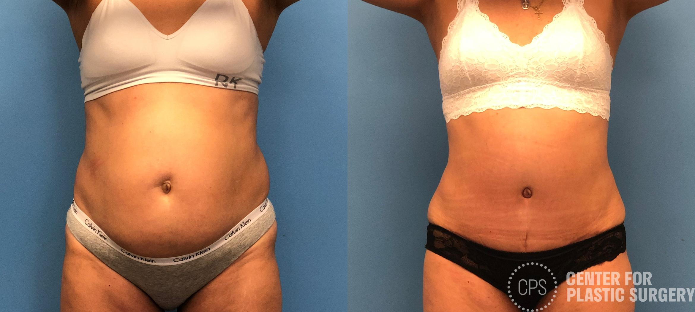 Tummy Tuck Case 153 Before & After Front | Annandale, VA & Chevy Chase, MD, Washington D.C. Metropolitan Area | Center for Plastic Surgery