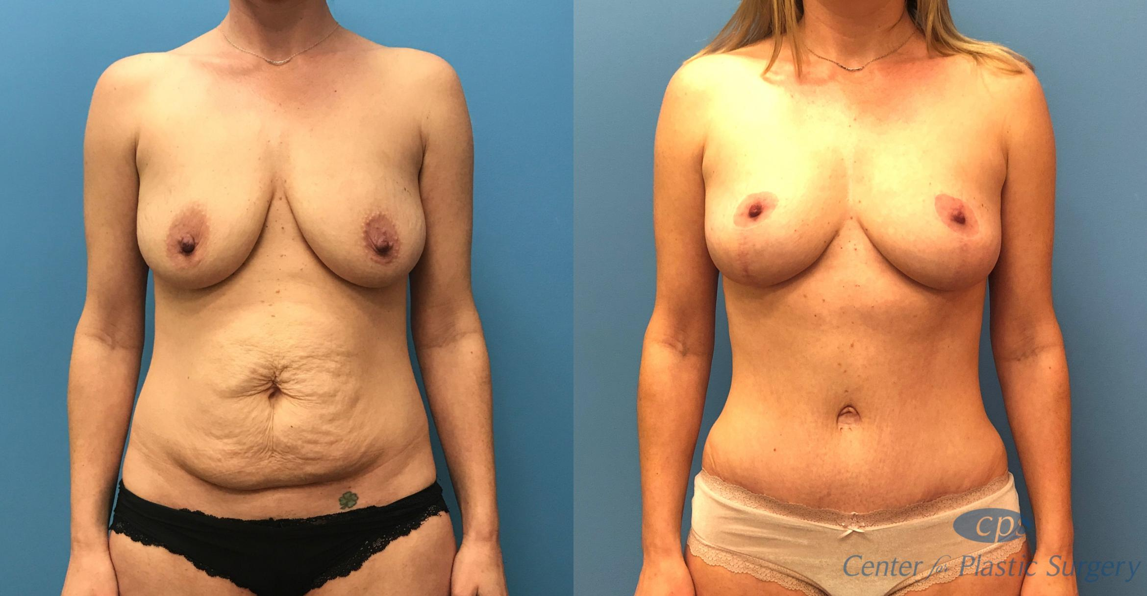 Mommy Makeover Before & After Photo | Annandale, Virginia | Center for Plastic Surgery