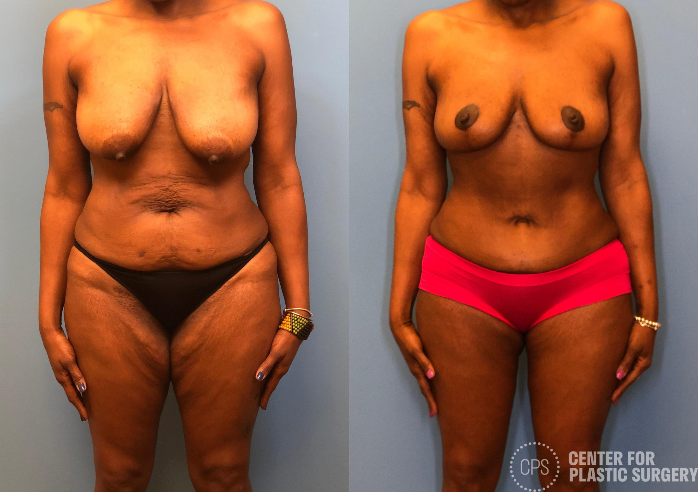Tummy Tuck Case 165 Before & After Front | Annandale, VA & Chevy Chase, MD, Washington D.C. Metropolitan Area | Center for Plastic Surgery