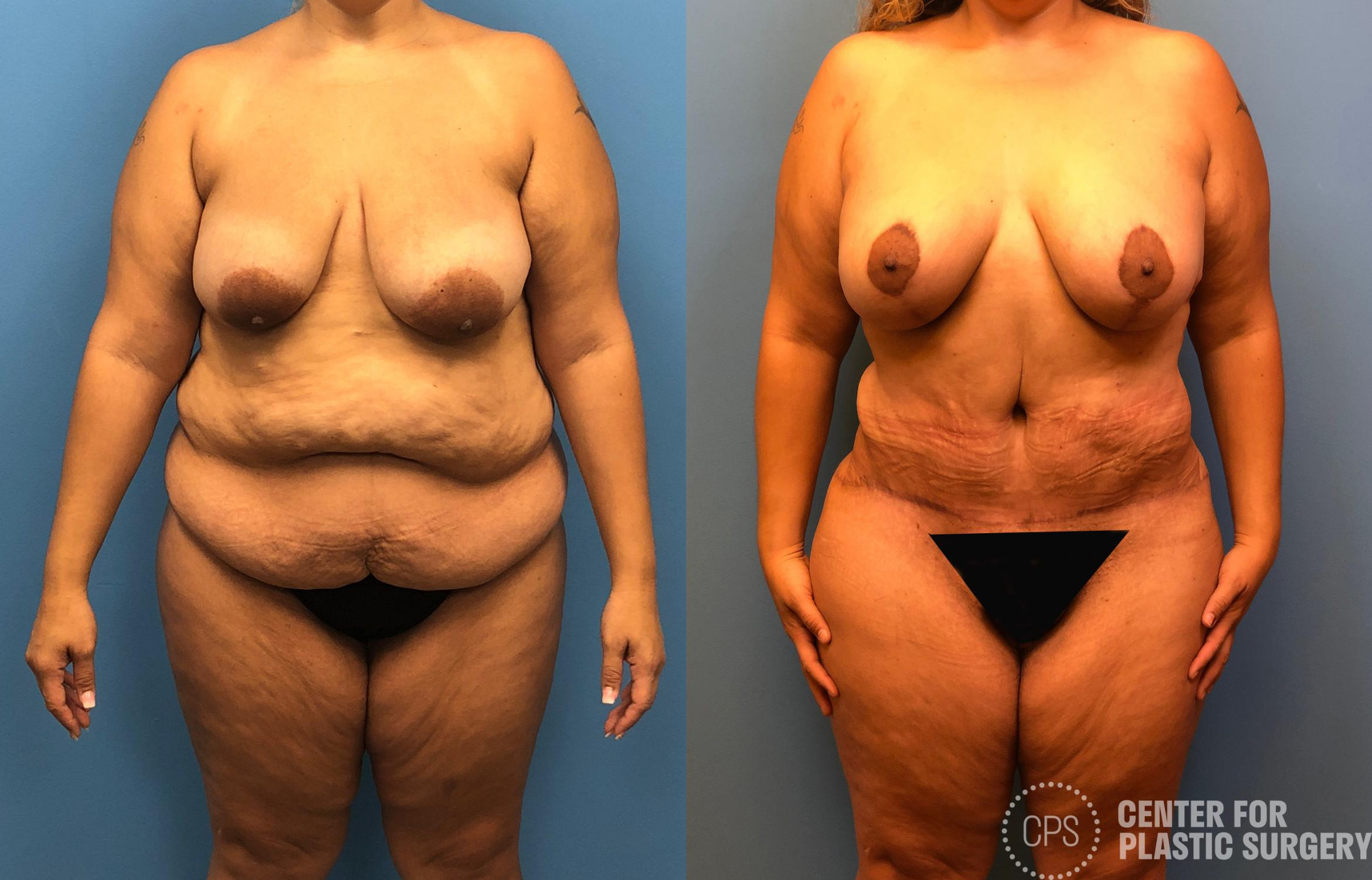 Tummy Tuck Case 179 Before & After Front | Annandale, VA & Chevy Chase, MD, Washington D.C. Metropolitan Area | Center for Plastic Surgery