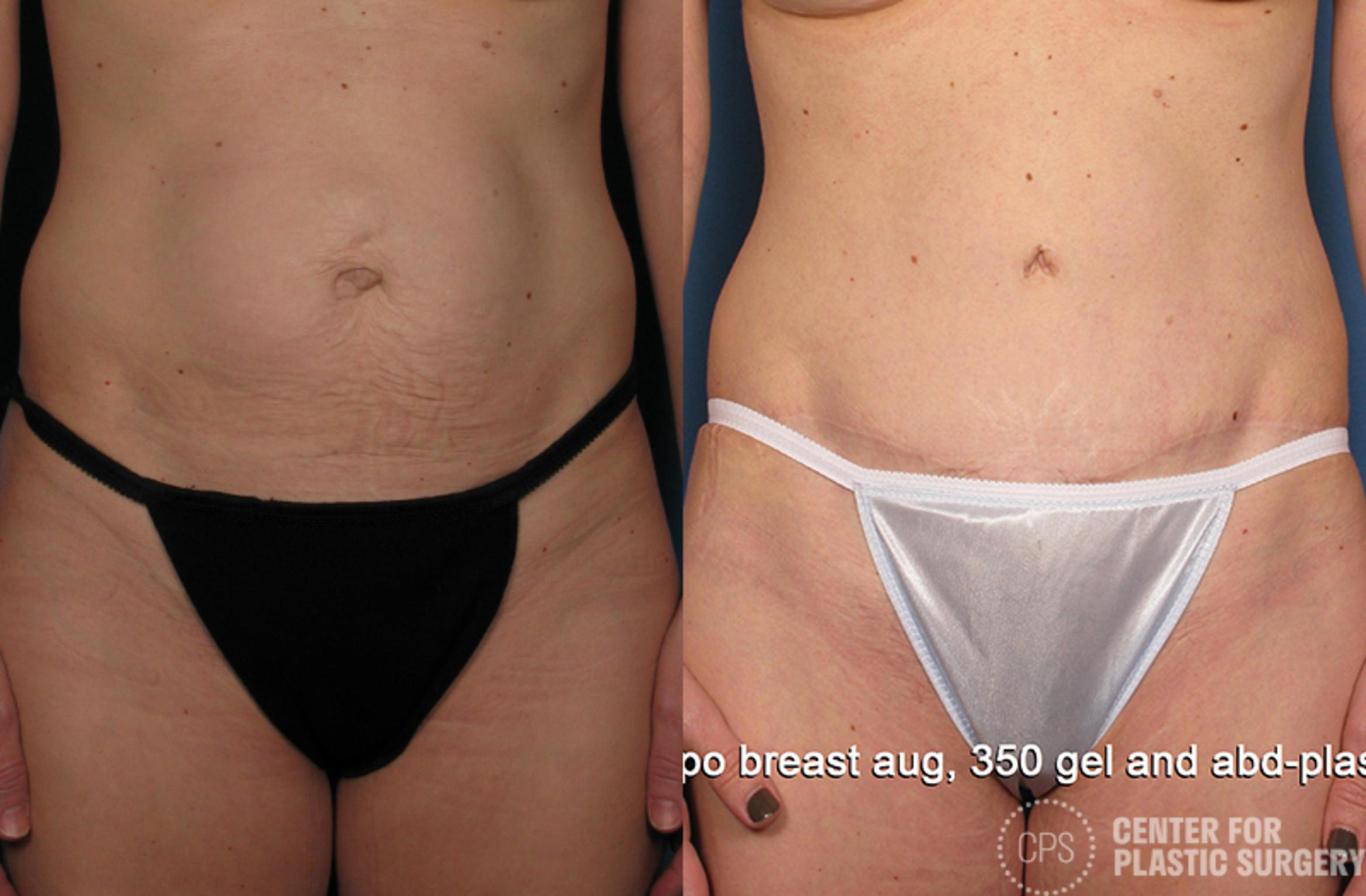 Tummy Tuck Case 43 Before & After Front | Annandale, VA & Chevy Chase, MD, Washington D.C. Metropolitan Area | Center for Plastic Surgery